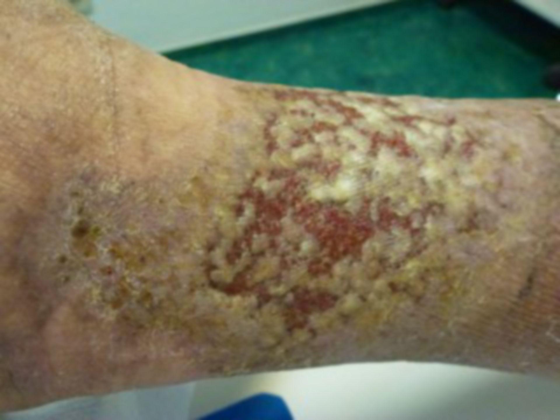 Ulcus cruris: Behandlungsfortschritt nach 10 Tagen
