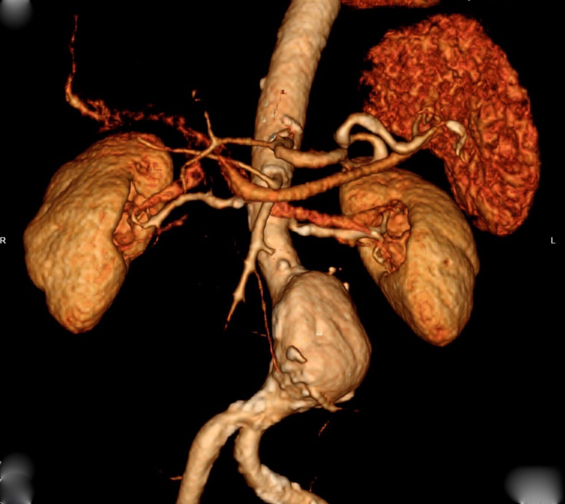 Abdominelles Aortenaneurysma