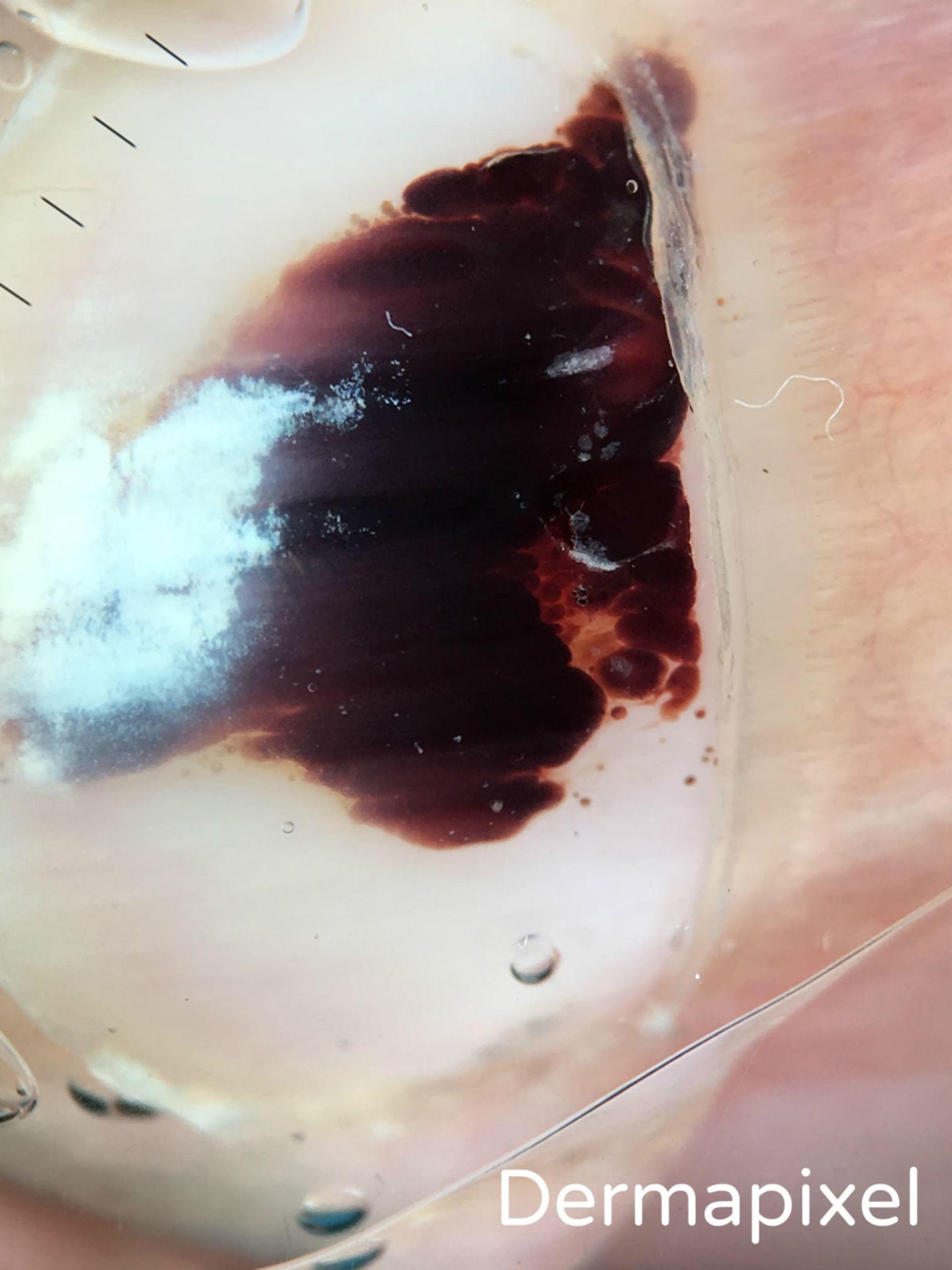 Una uña negra (2)