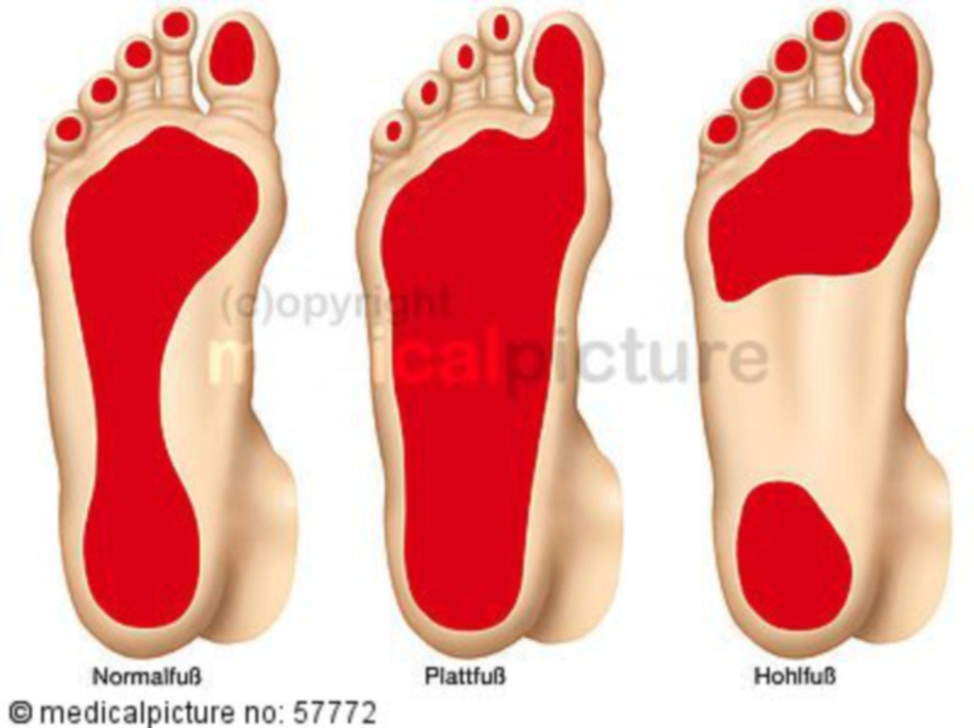 Deformities of the Foot