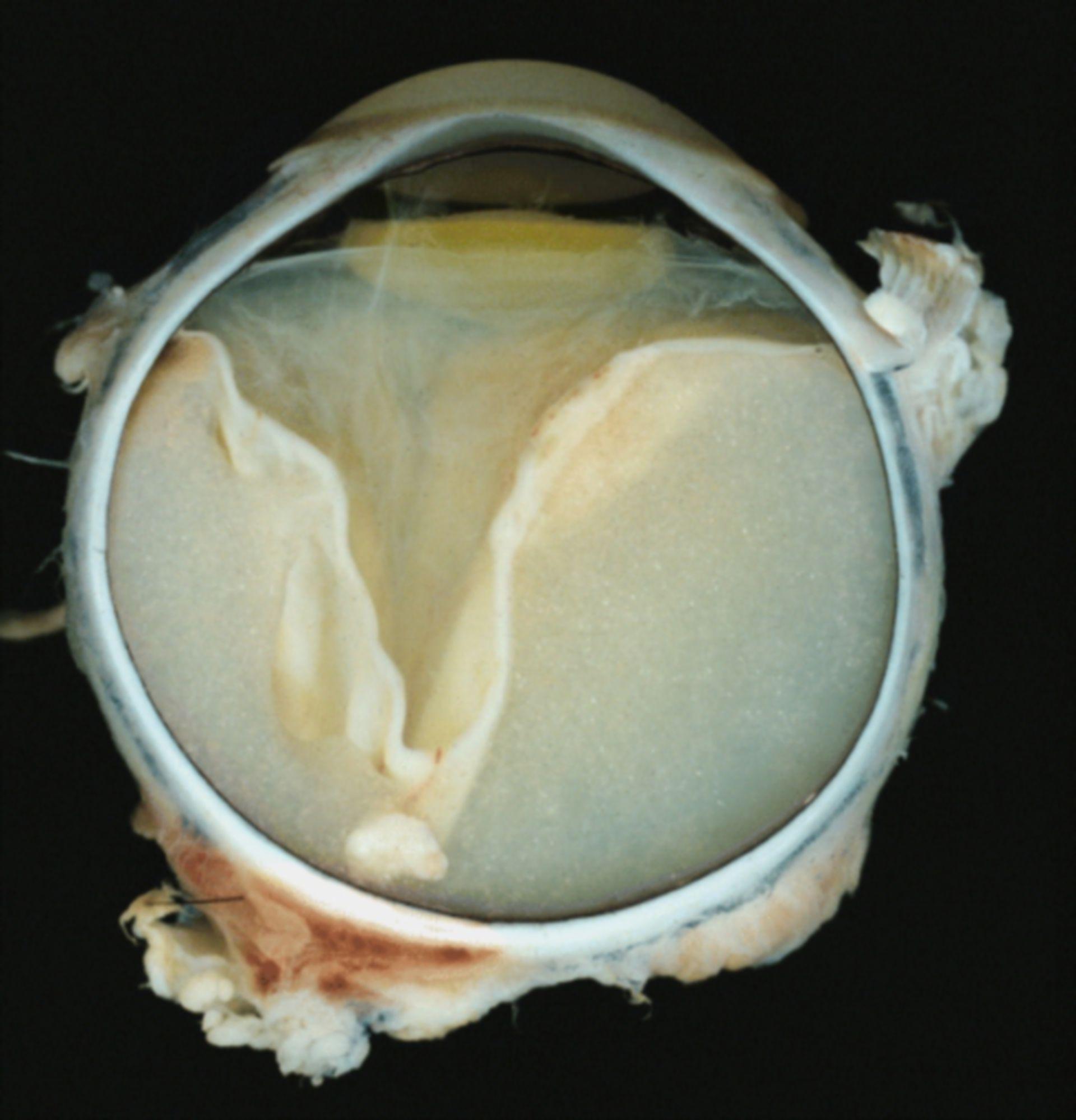 Coats' disease: Eye and Ocular Adnexa