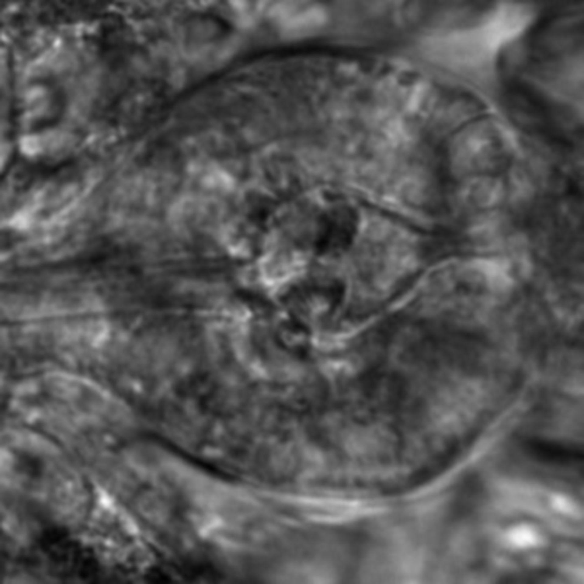 Caenorhabditis elegans - CIL:2642