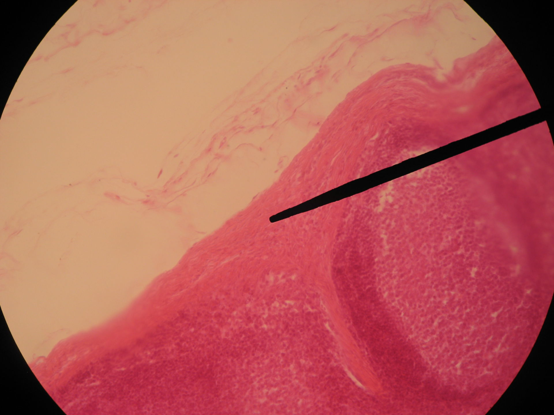 Bovine Lymph Node (2)- Connective Tissue Capsula with Trabeculae