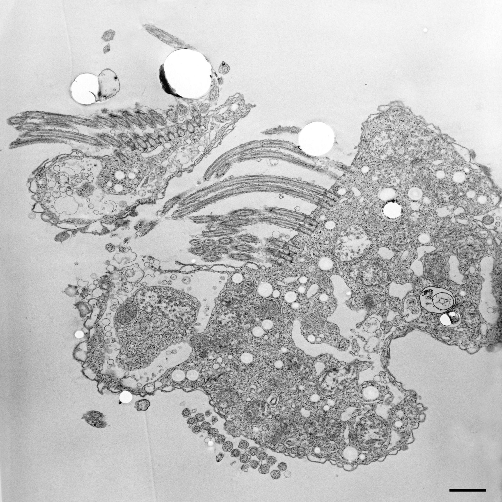 Halteria grandinella (citoplasma) - CIL:12325
