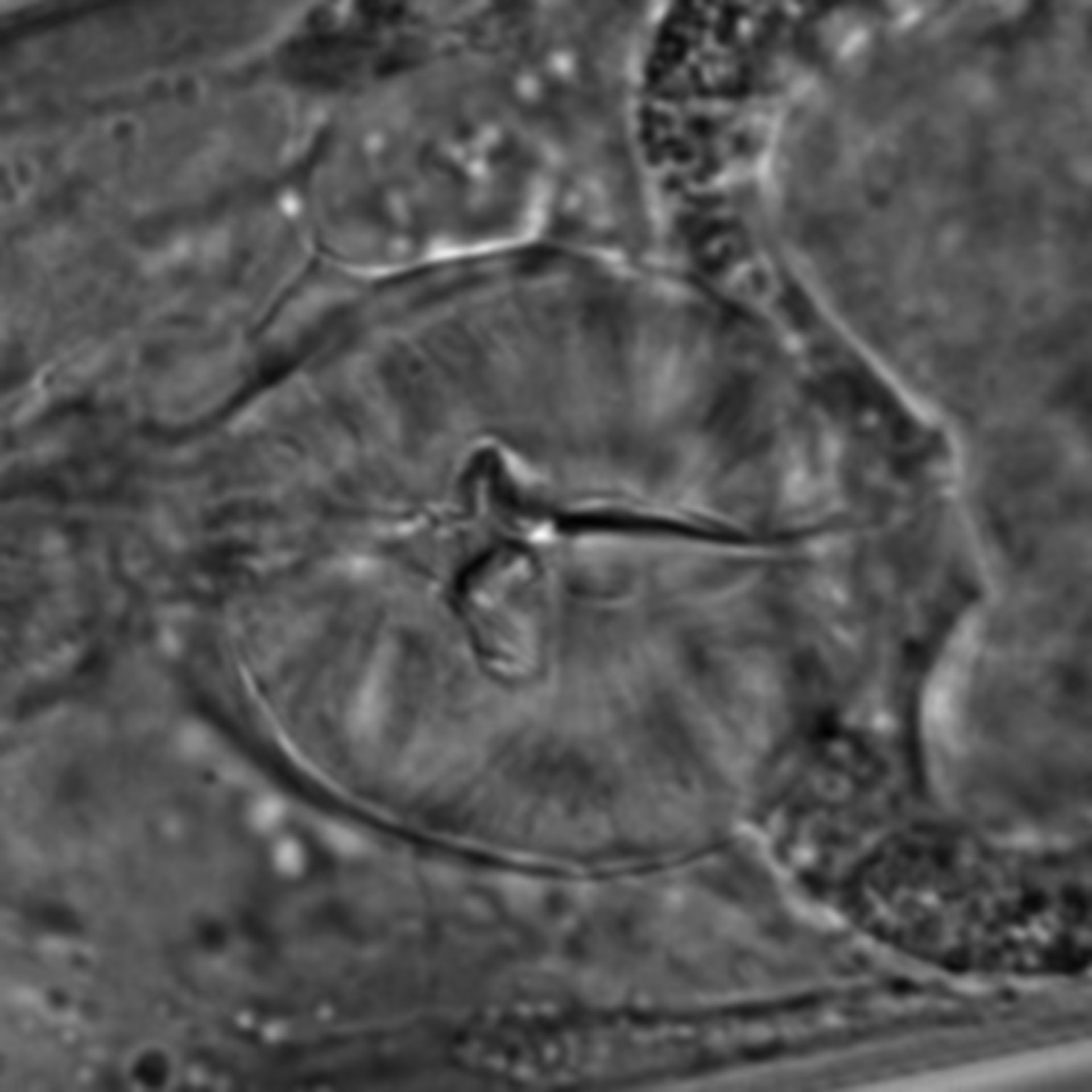 Caenorhabditis elegans - CIL:1632