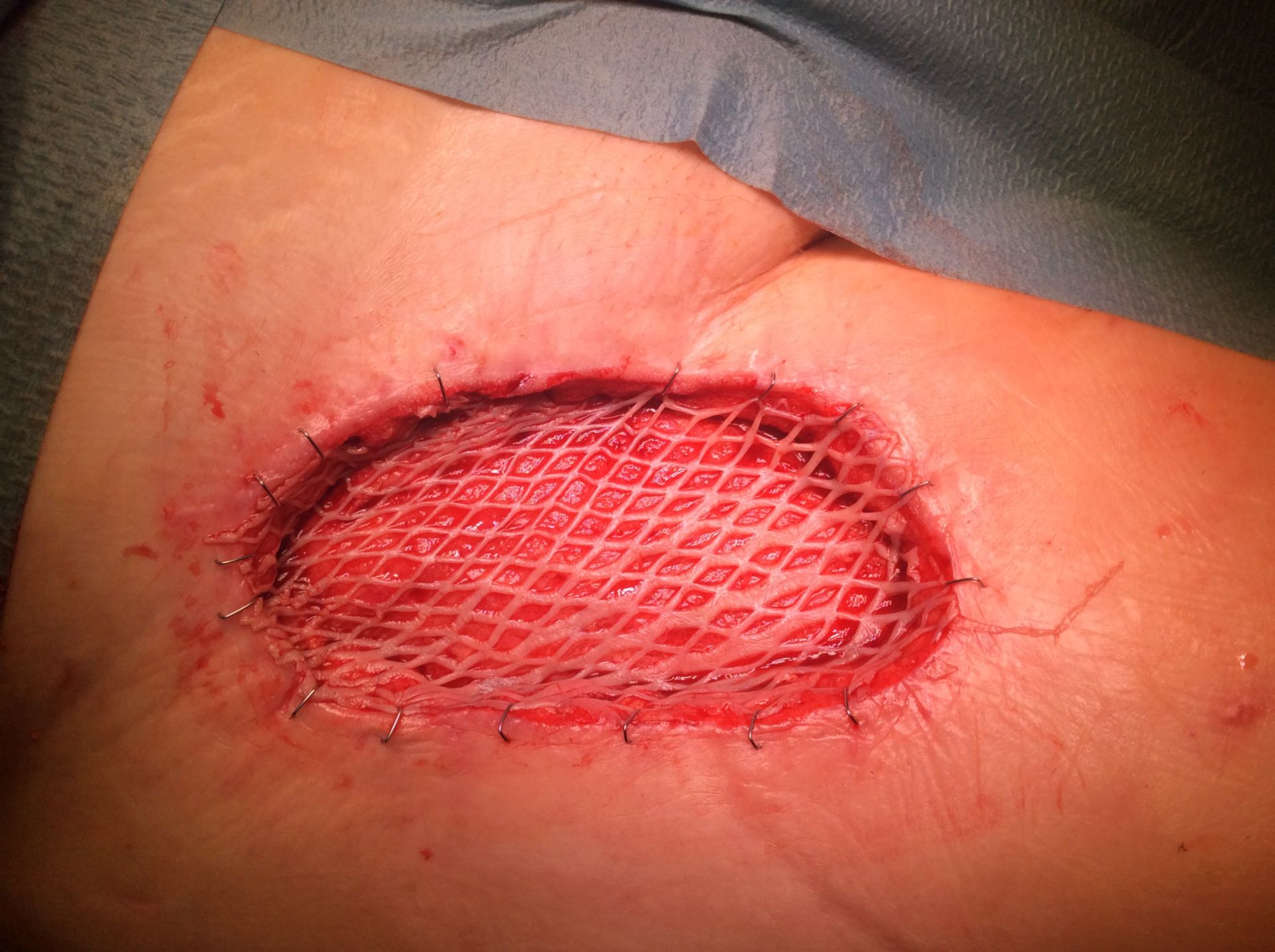Trasplante de piel de la ingle derecha tras lavar con VAC Verflow debido a la infección de MRSA (Condición después de un Bypass)