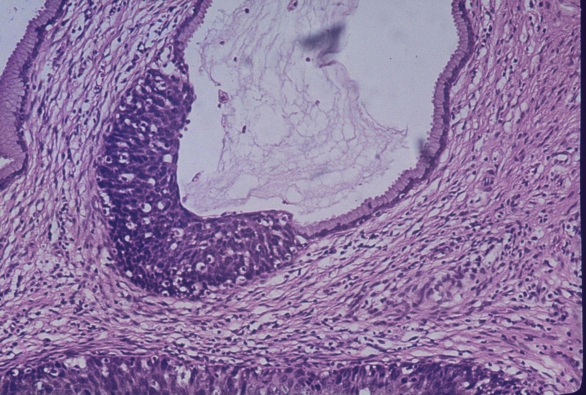 Cervice - carcinoma cervicale