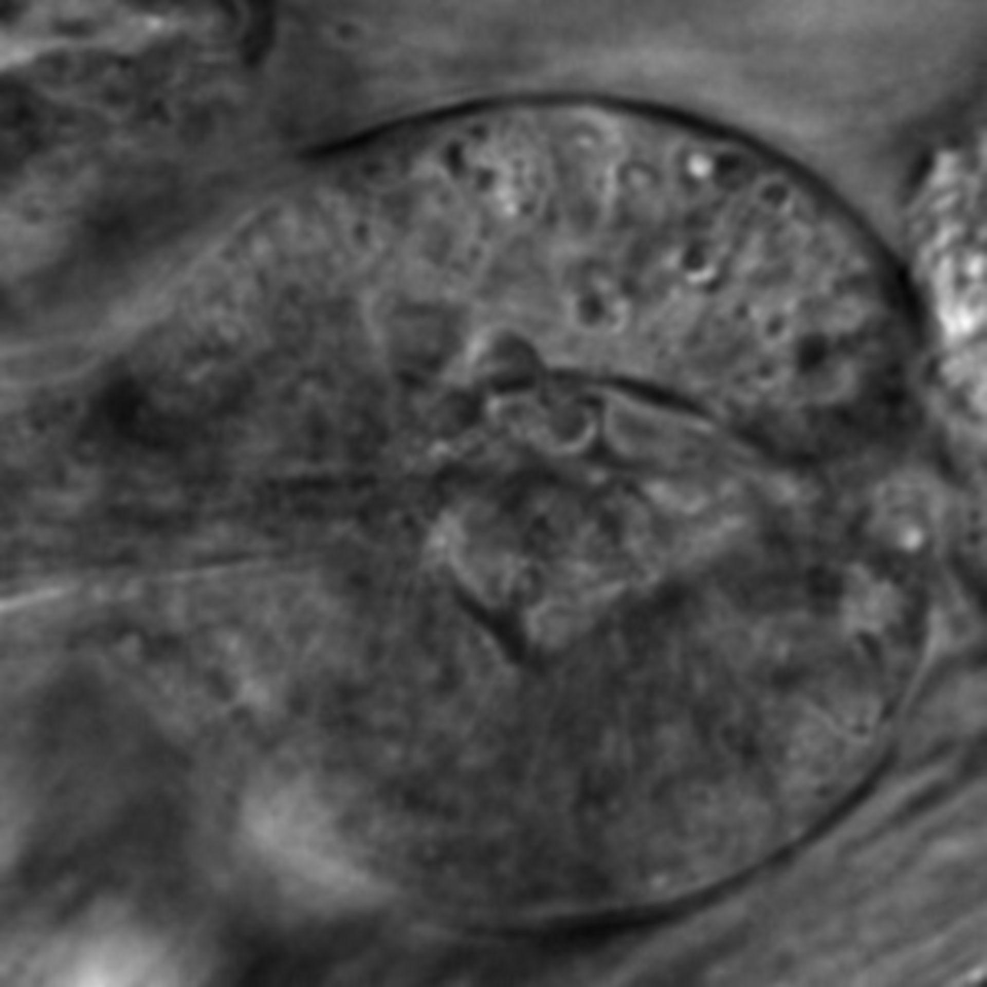 Caenorhabditis elegans - CIL:2630