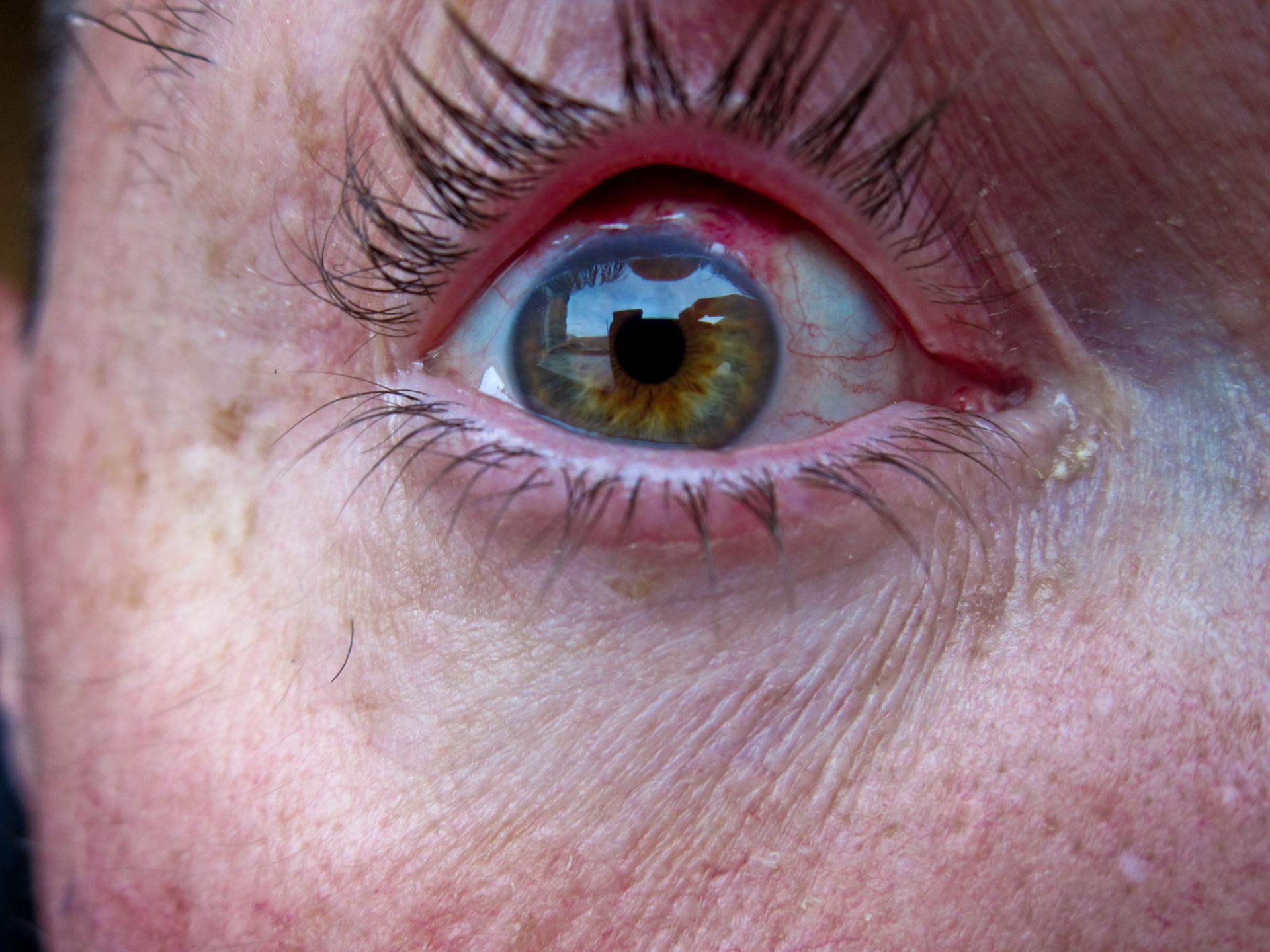 Chirurgia dell'occhio - post-operatorio (2)