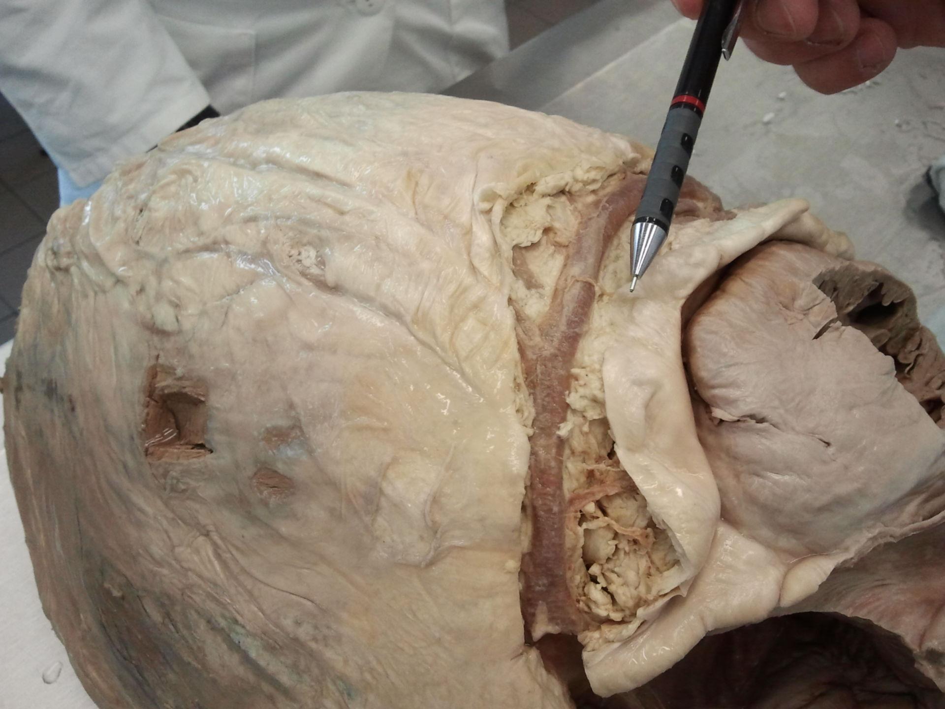 Coronary artery of elephant's heart 2