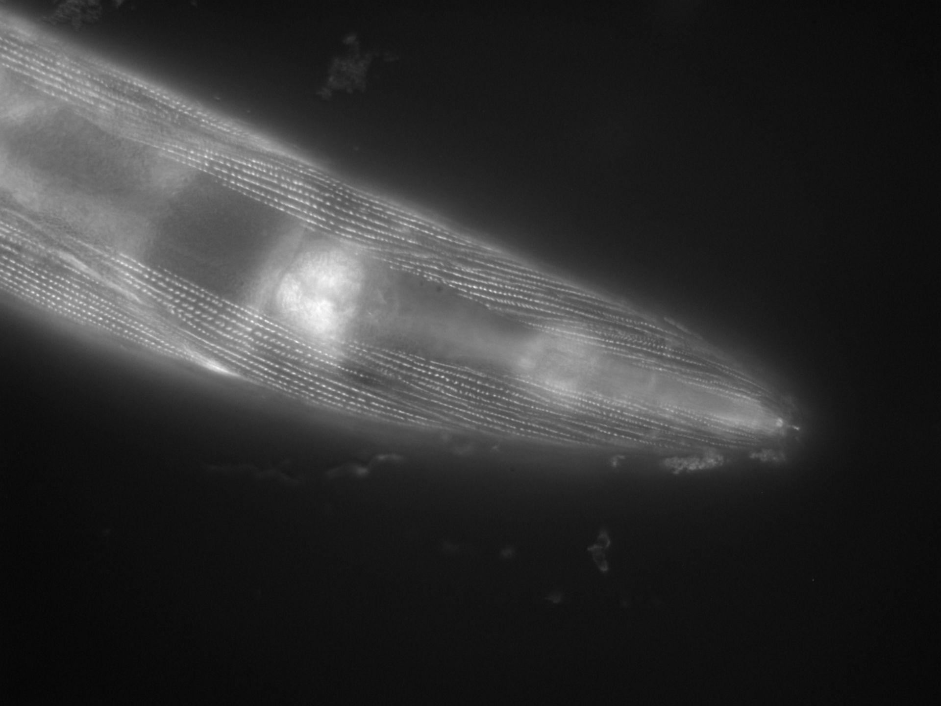 Caenorhabditis elegans (Actin filament) - CIL:1125