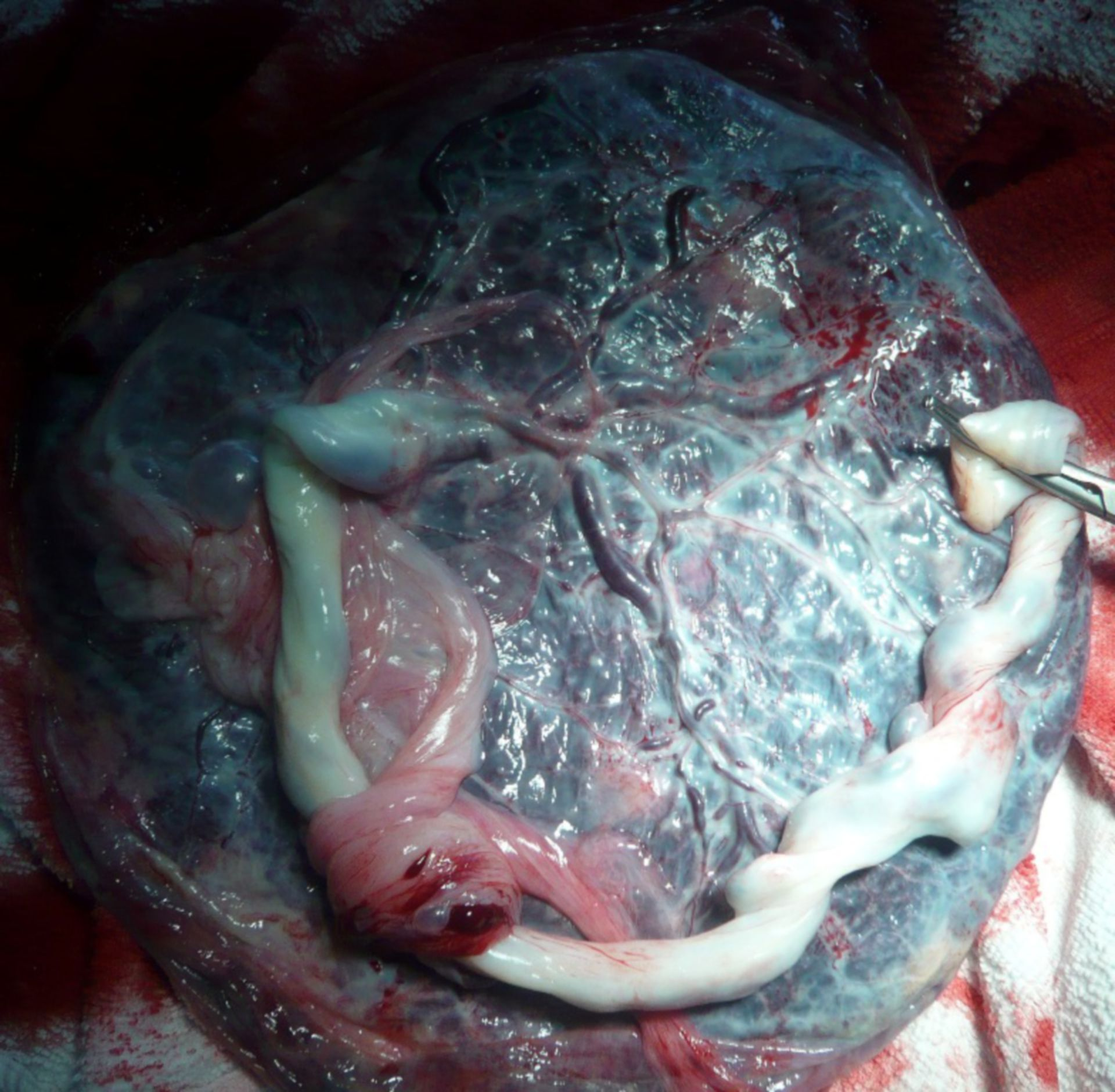 Placenta -  versante embrionale