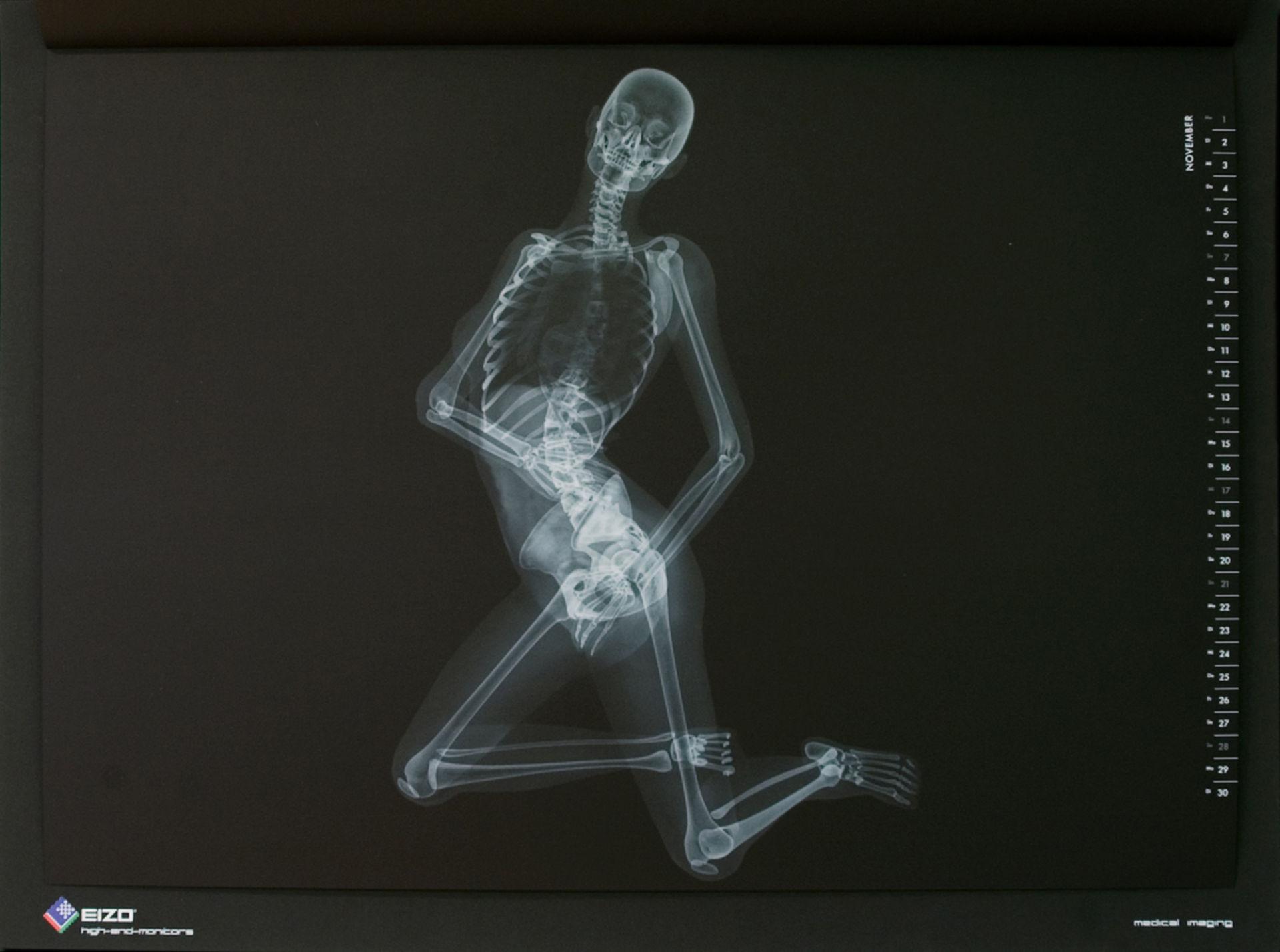 Diagnosis of radiographs
