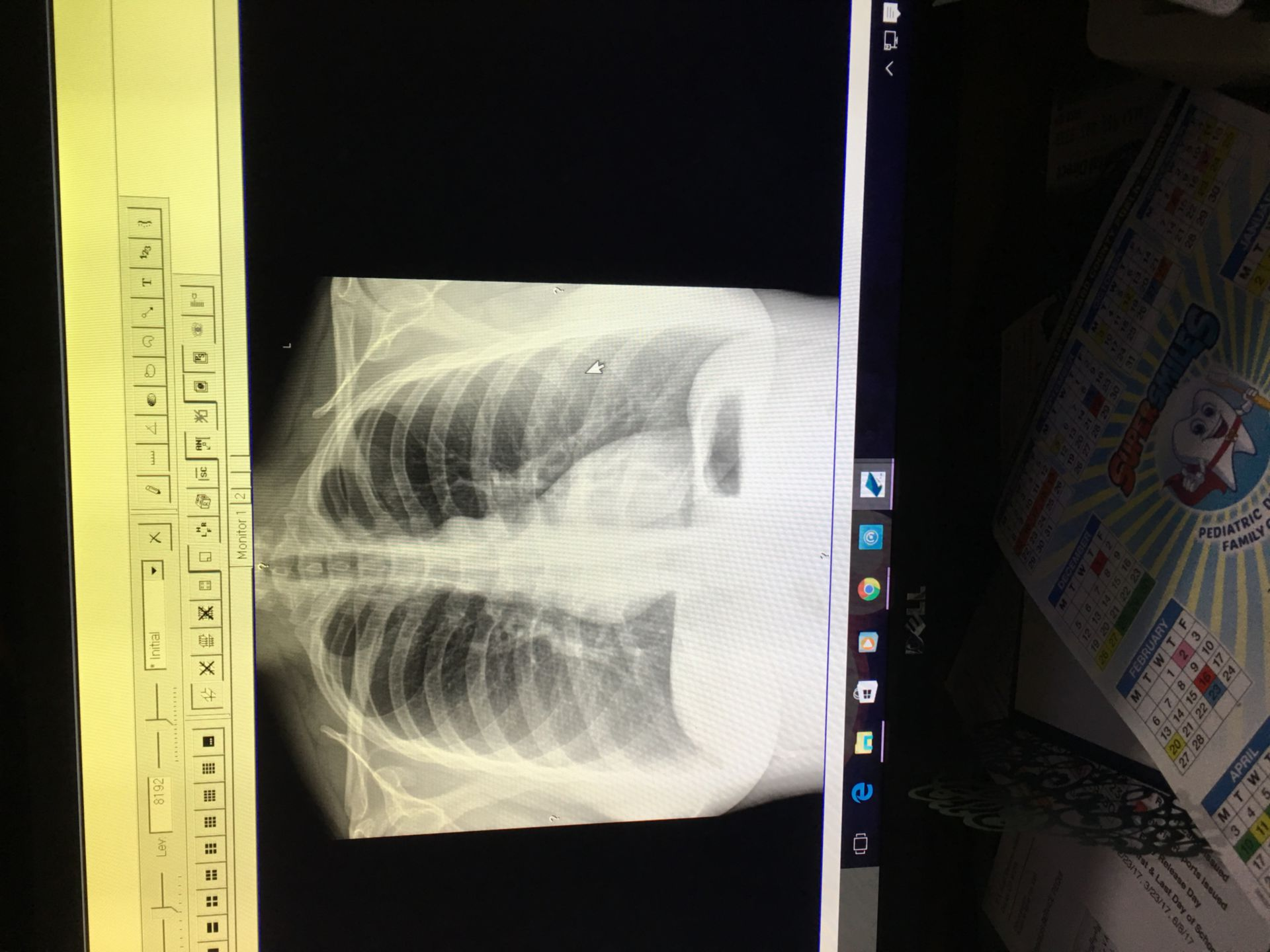 Röntgenbild des Brustbereichs