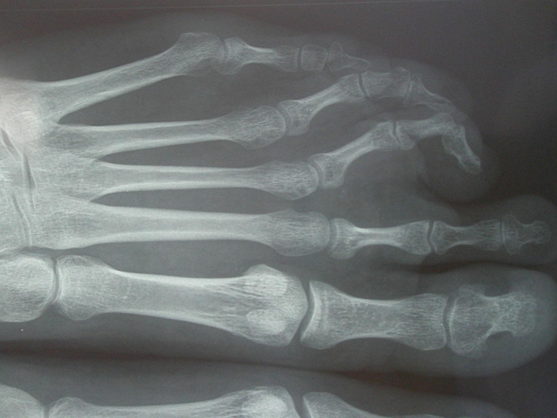 Periphere Spondylarthritis, Fußbeteiligung