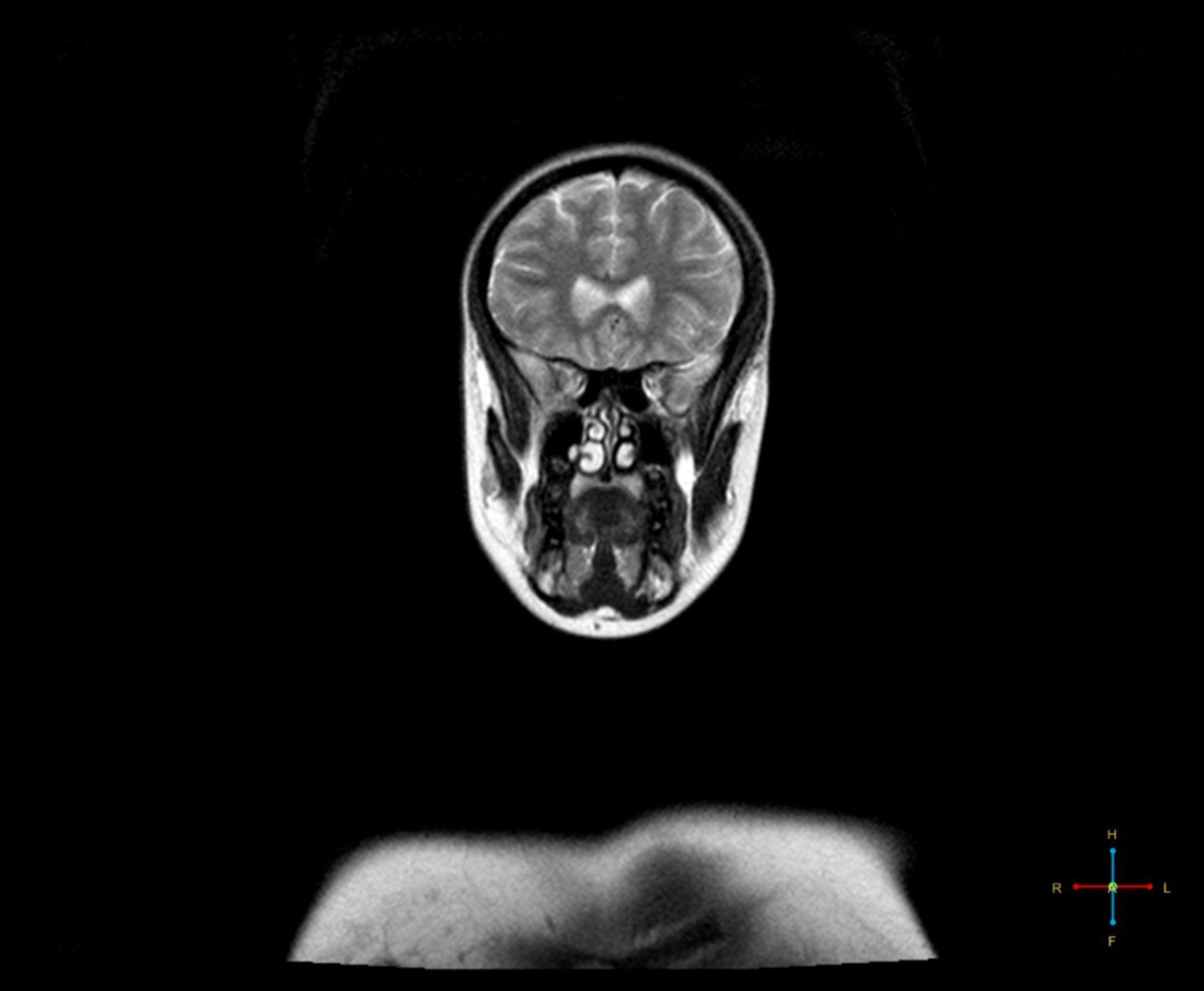 MRT: Kopf