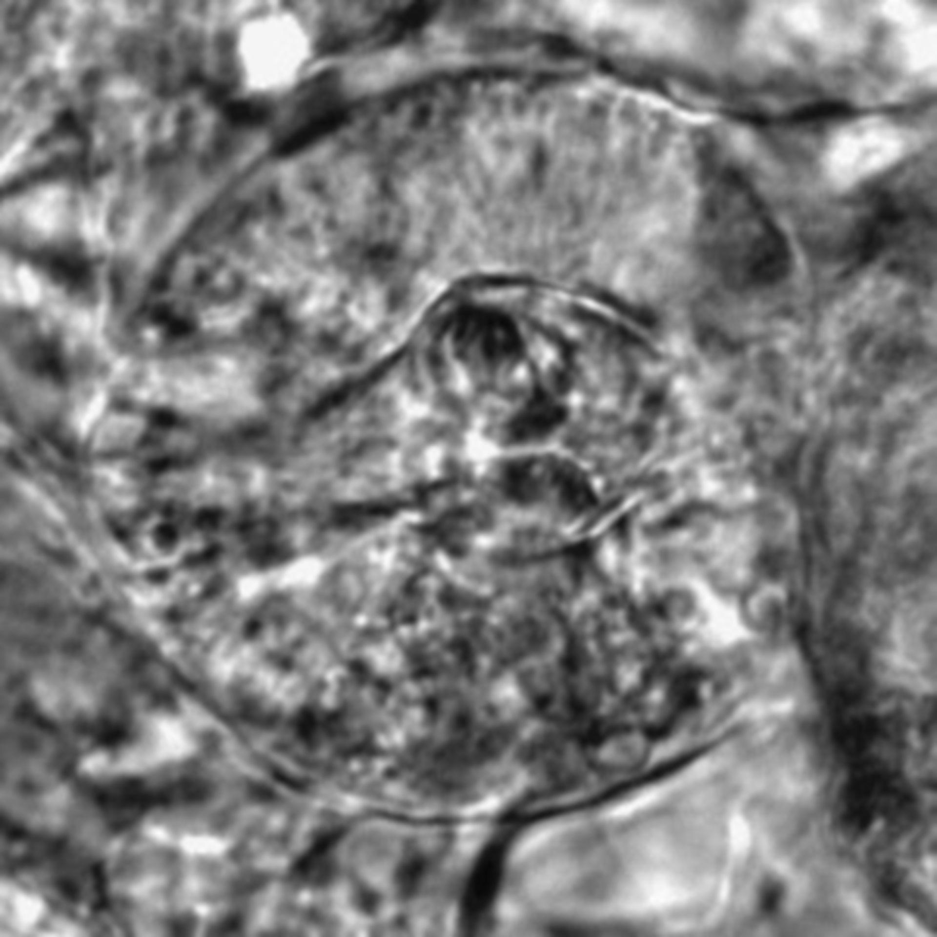 Caenorhabditis elegans - CIL:2591
