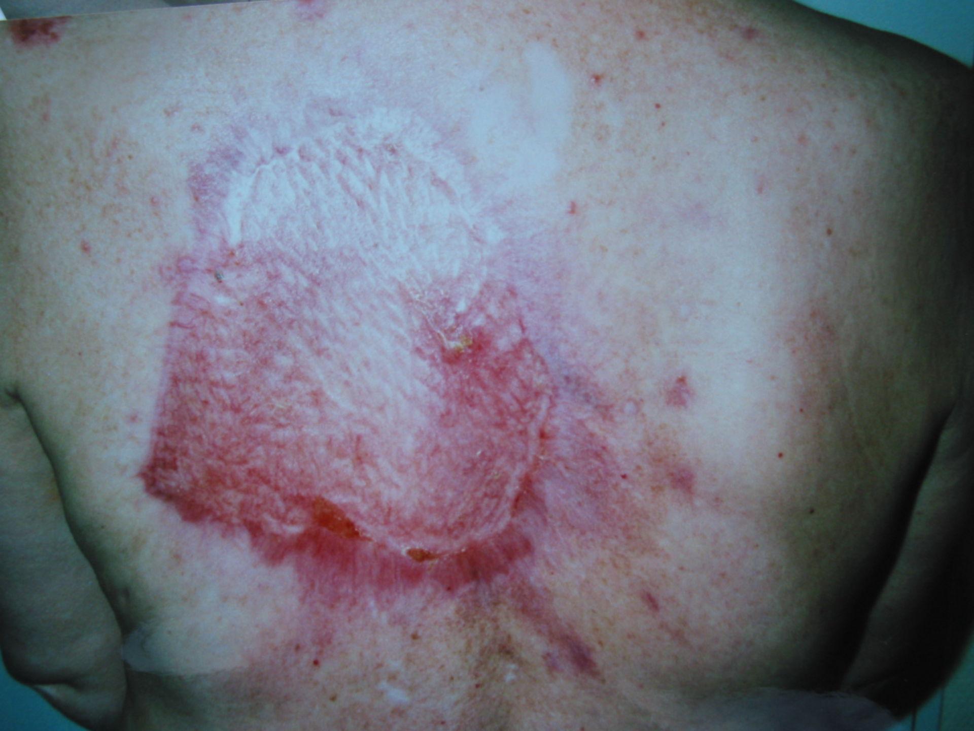 Carcinoma basocellulare sulla schiena - risultato 6 settimane dopo intervento chirurgico