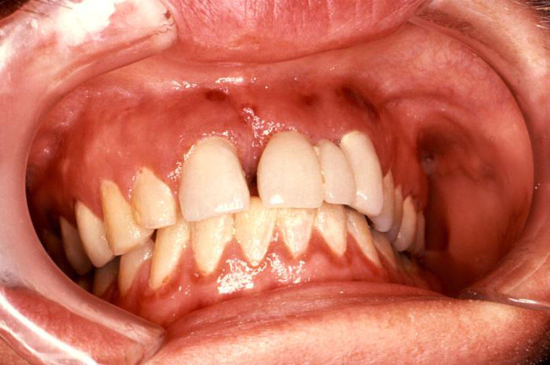 Orale Erkrankung bei AIDS: Kaposi-Sarkom