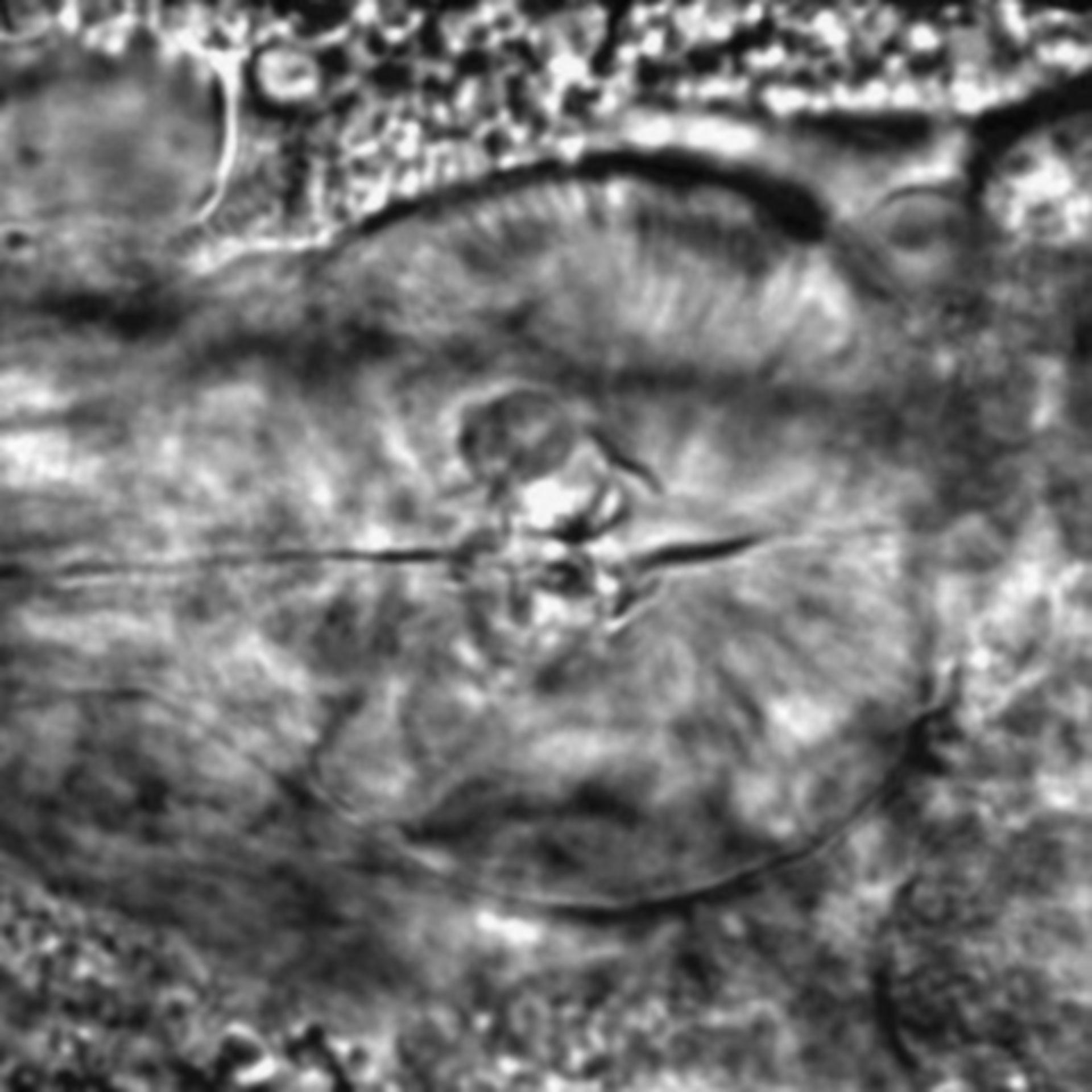 Caenorhabditis elegans - CIL:2207