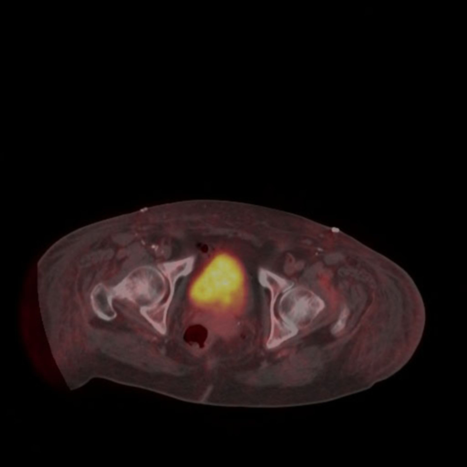 bildgebendes Verfahren, PET Scan Gallenblase