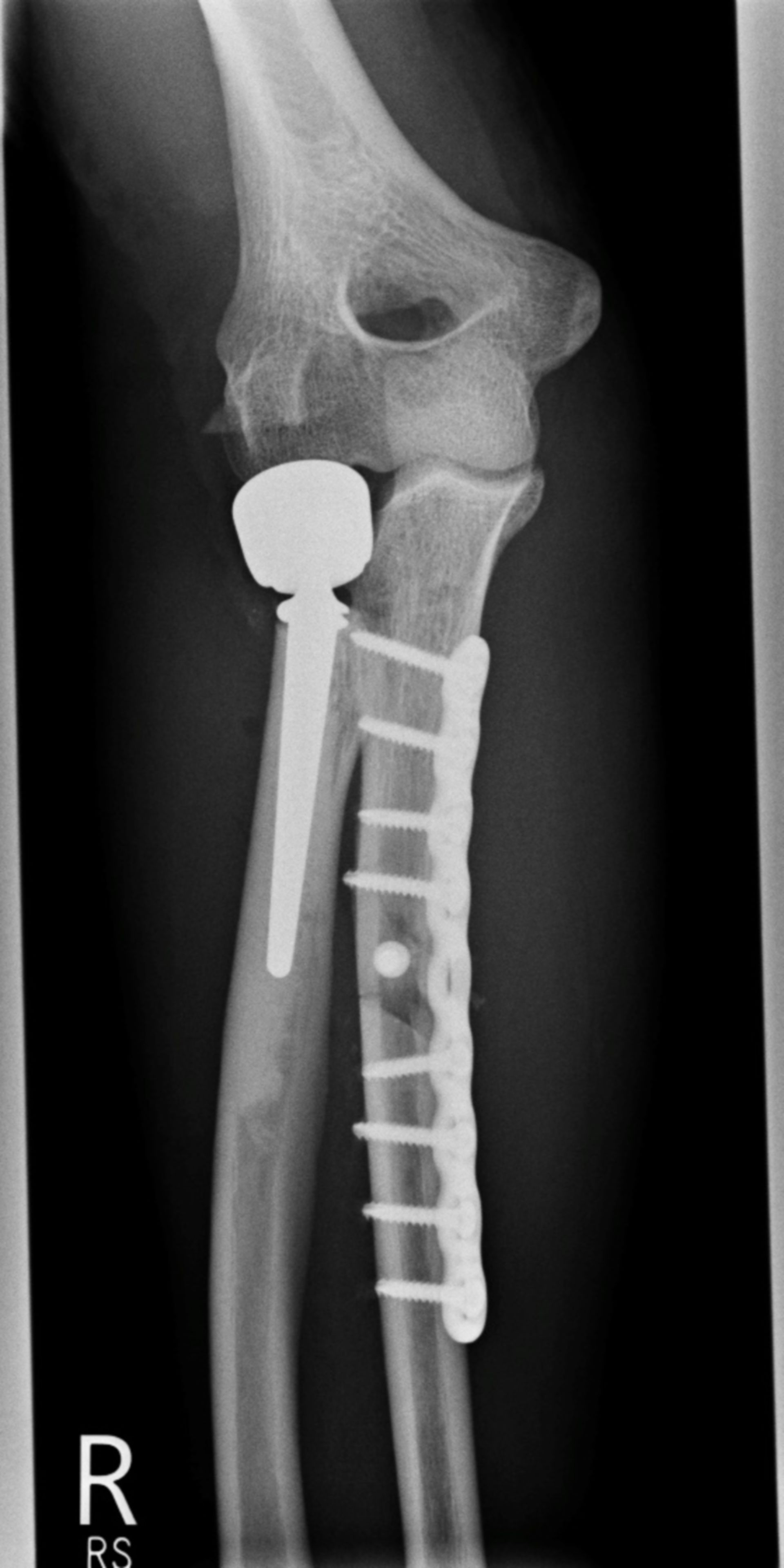 Unterarmfraktur nach Osteosynthese-ap