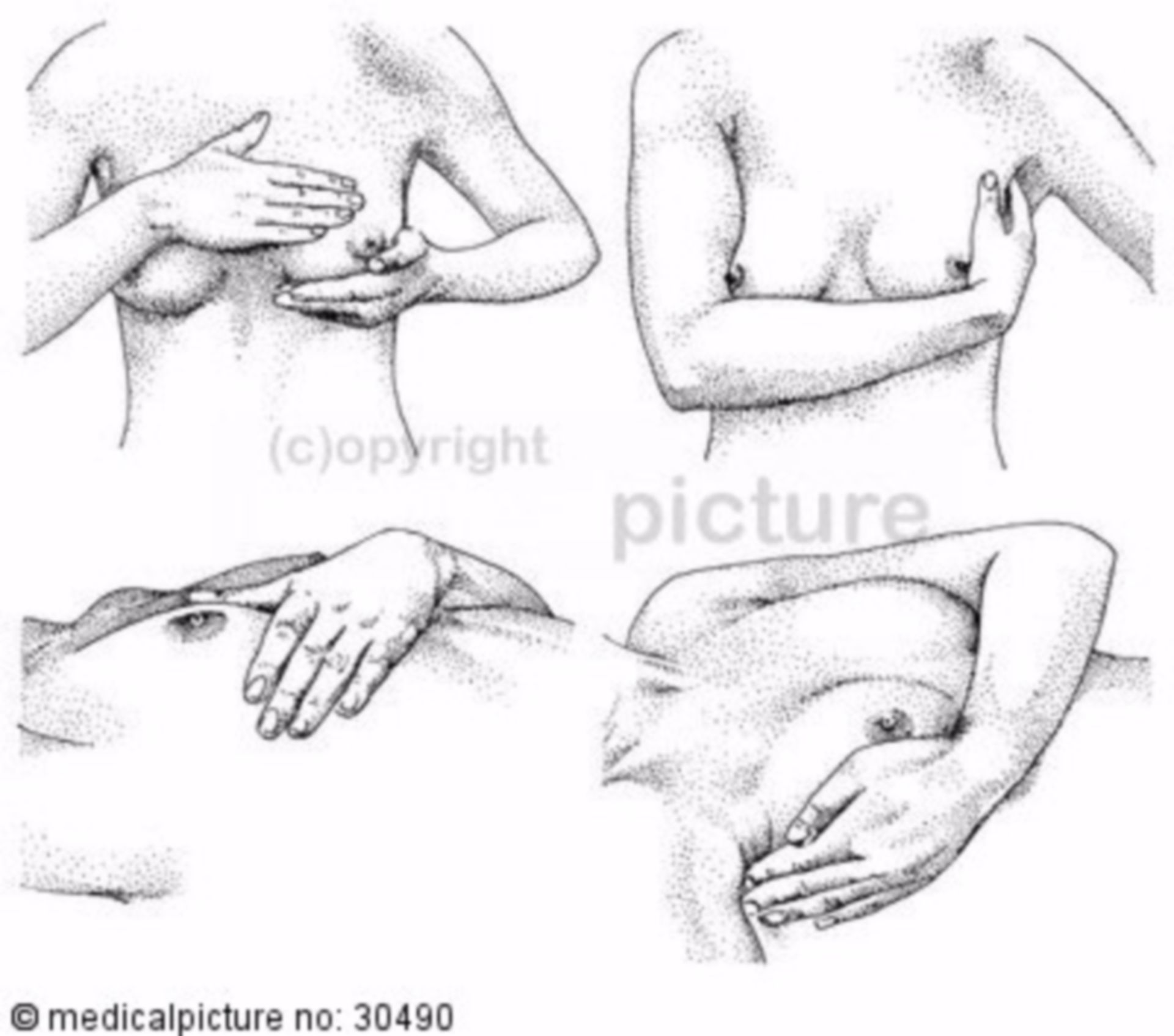 Palpation of the breast