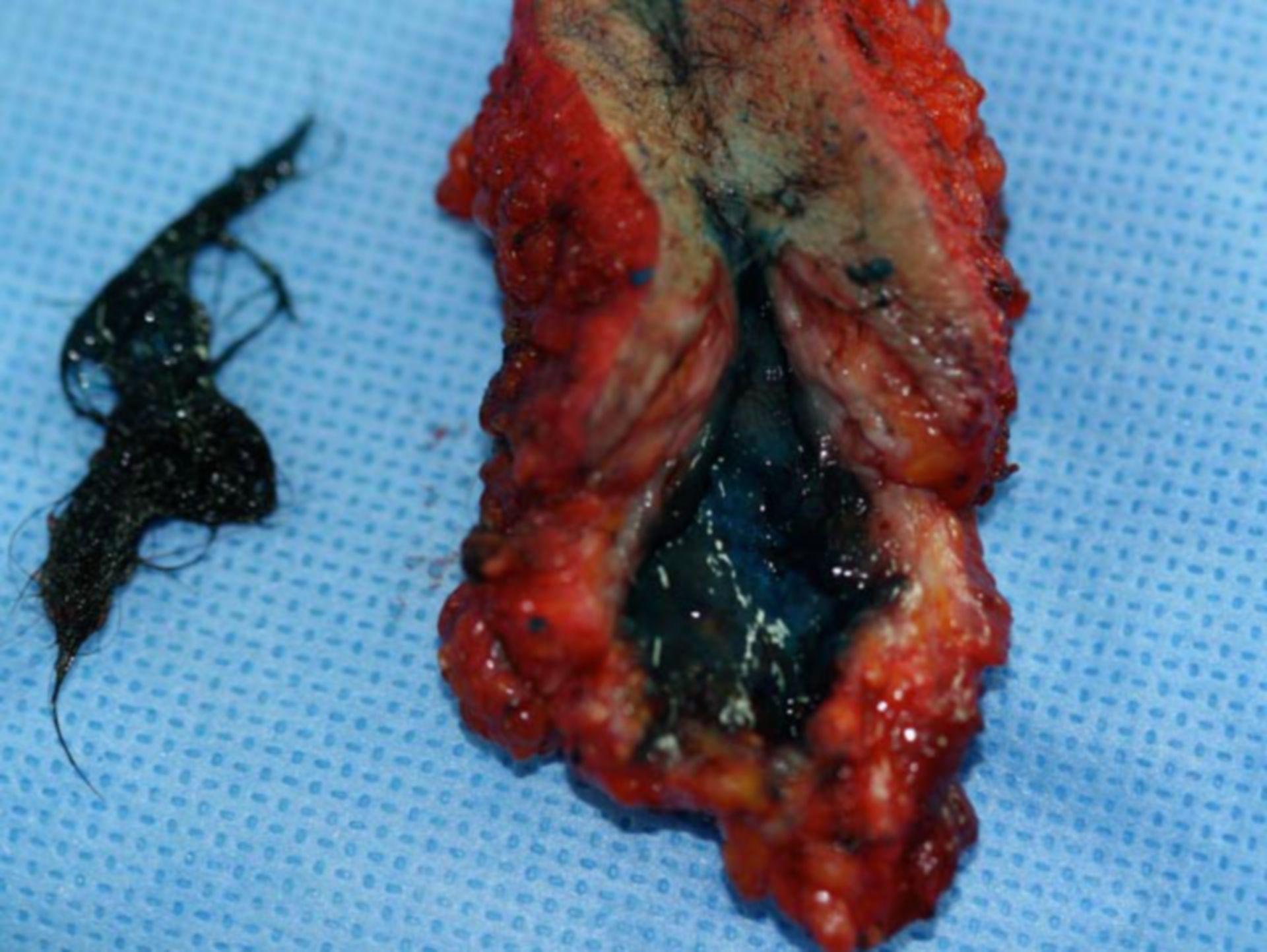 Preparación de una excisión después de una fístula del coxis