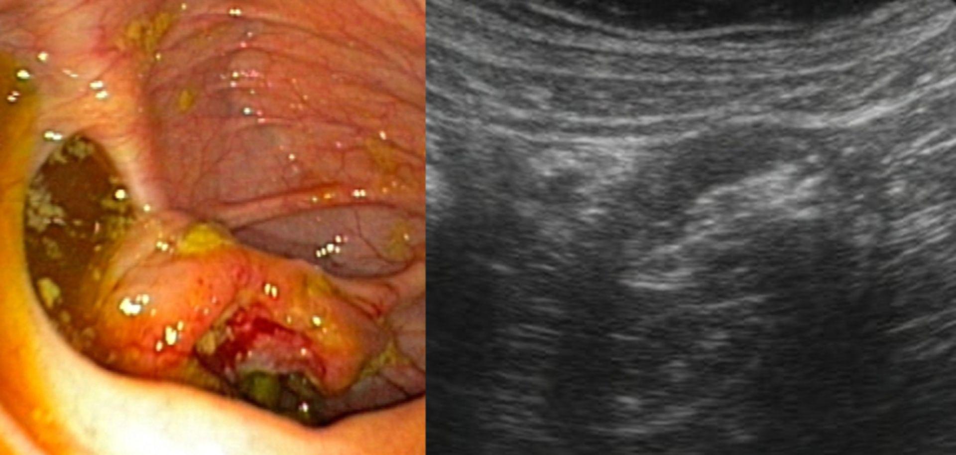 Tumor of the cecum