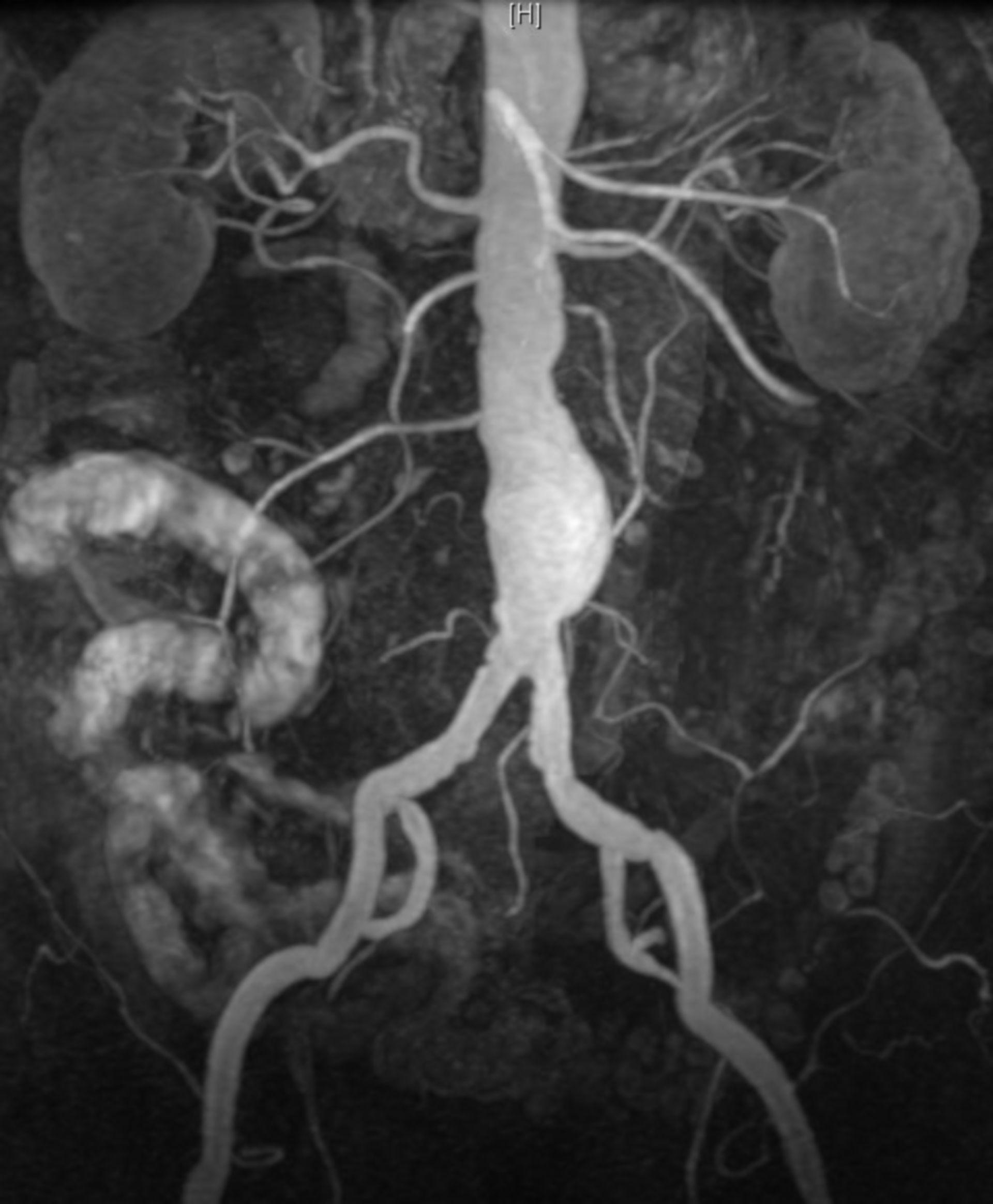 Abdominal aortic aneurysm (MRA, MRI)