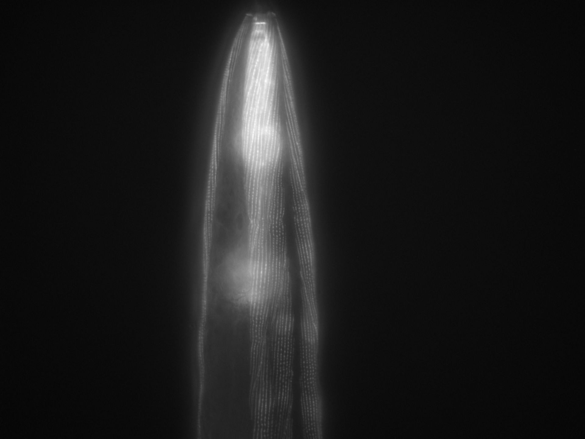 Caenorhabditis elegans (Actin filament) - CIL:1024