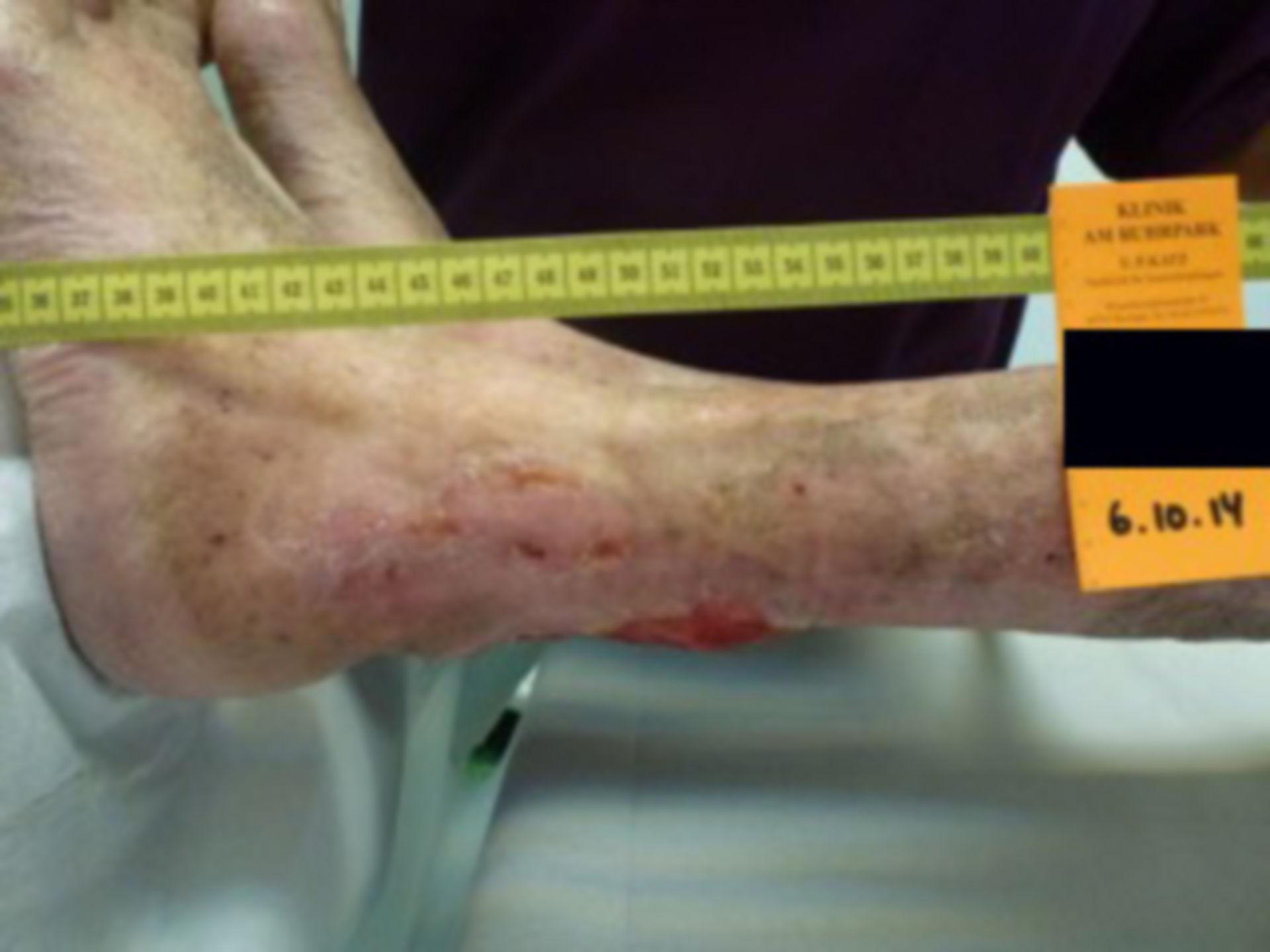 Úlcera de la pierna - abierta por 40 años (28)