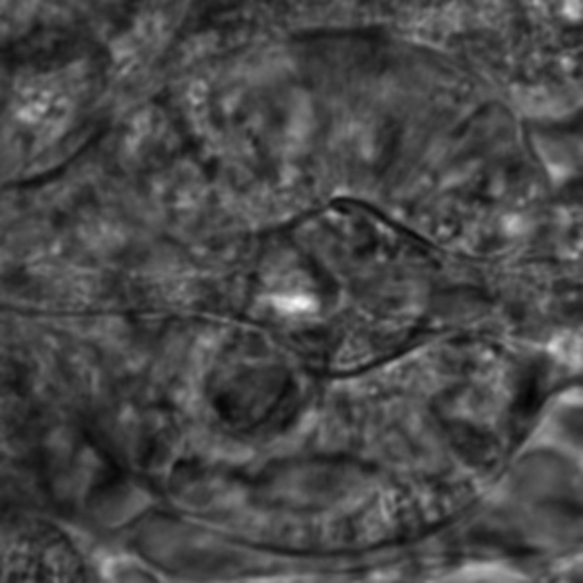 Caenorhabditis elegans - CIL:2645