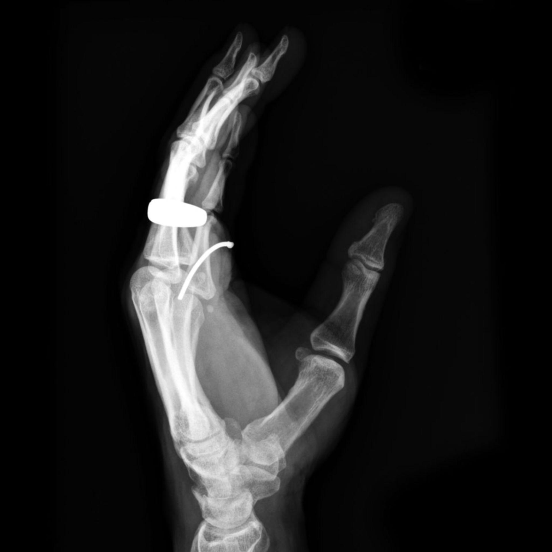 Chiodo nella mano (radiografie, vista laterale.)