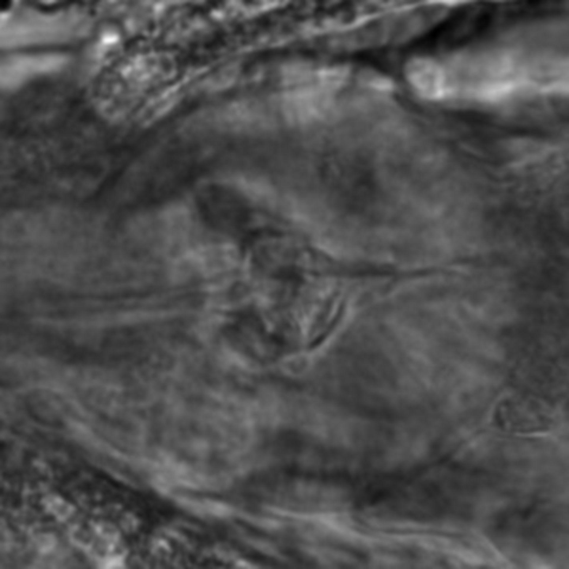 Caenorhabditis elegans - CIL:2255