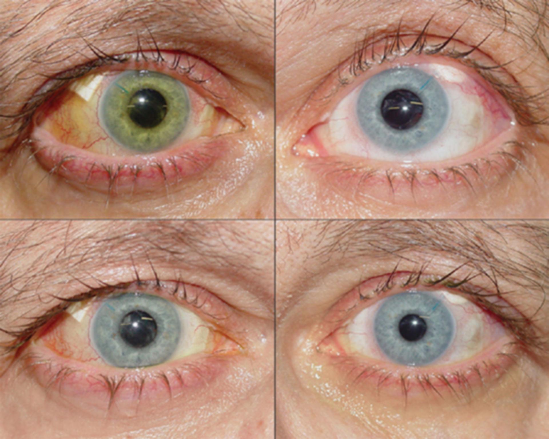 Verfärbung der Iris nach Glaukom-Operation