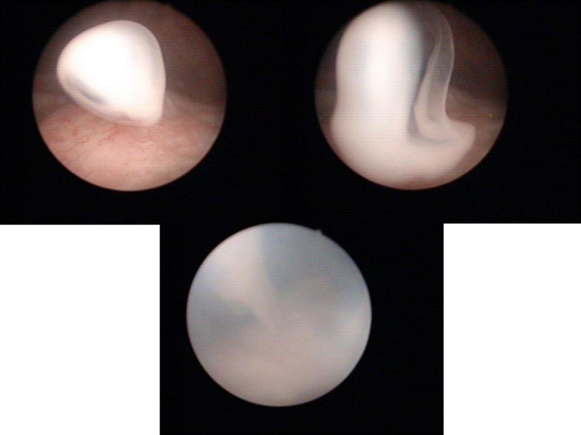 Chiluria dall'uretere sinistro