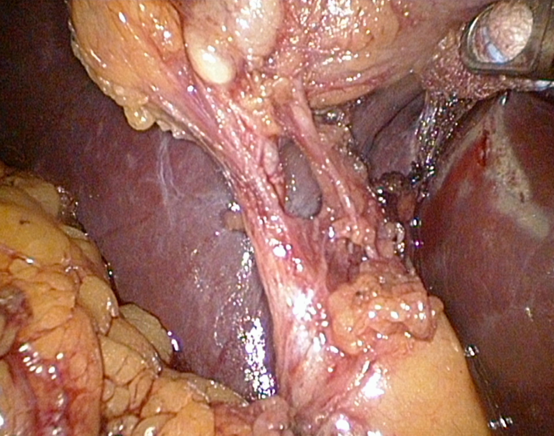 Colicistectomia in laparoscopia - Triangolo di Calot