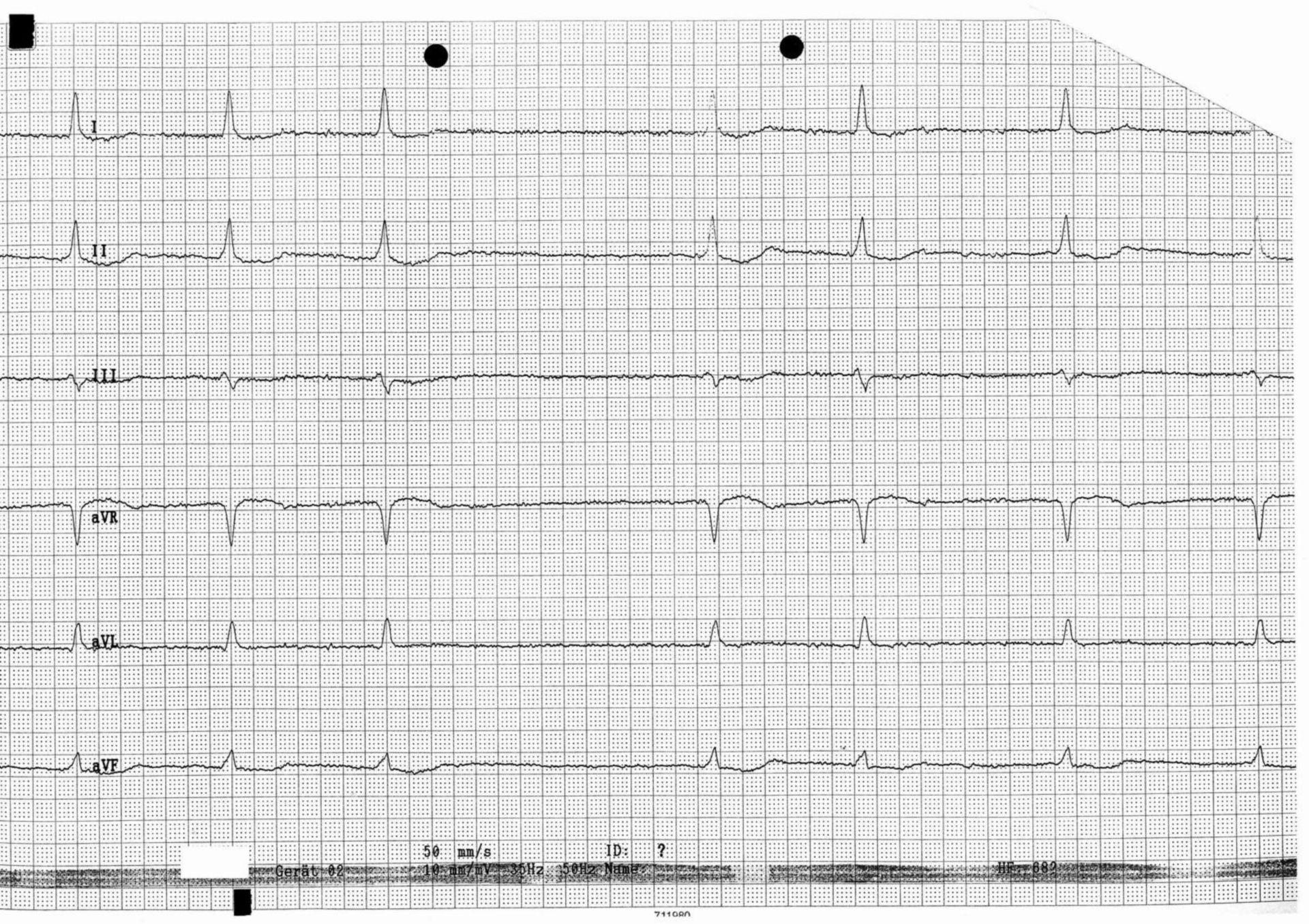 ECG con fibrillazione atriale