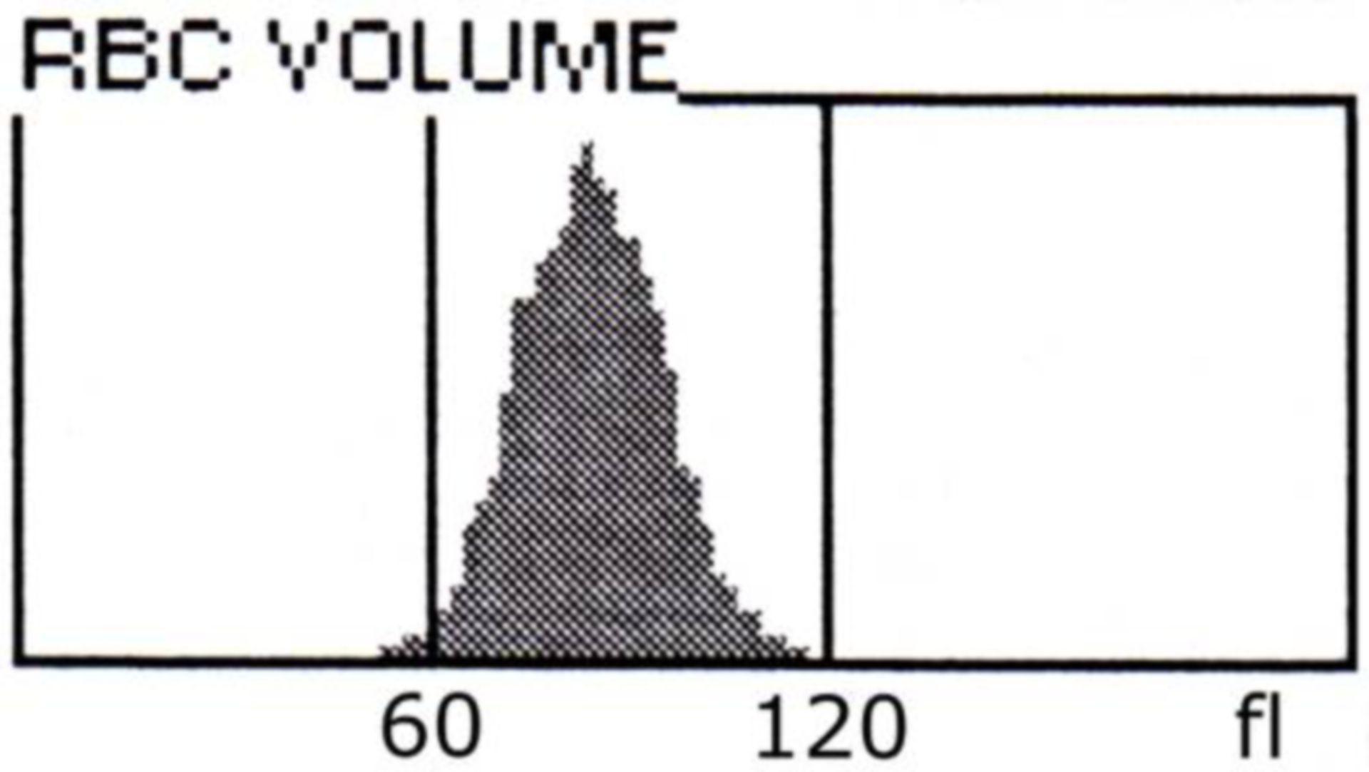 Histogramm des Erythrozytenvolumens