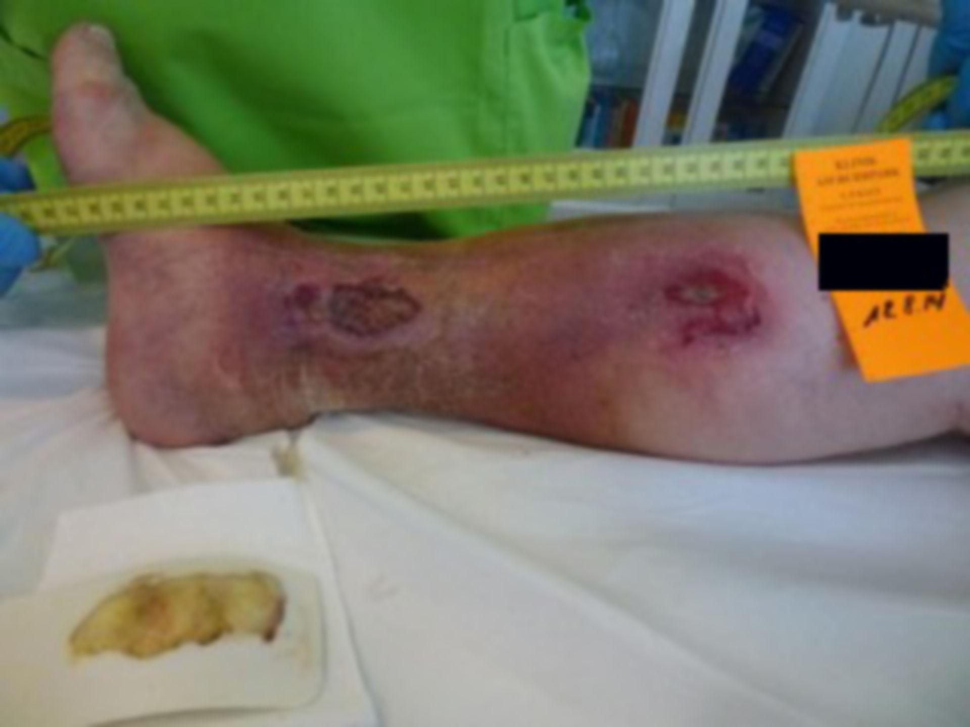 Úlcera de la pierna - abierta por 18 meses (2)