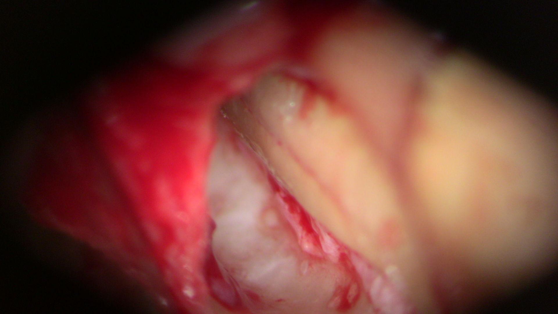 Frattura verticale del dente
