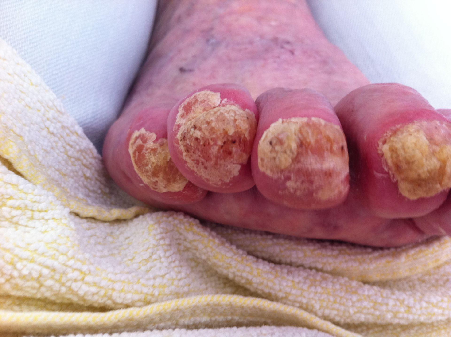 Krümel Psoriasis der Nägel