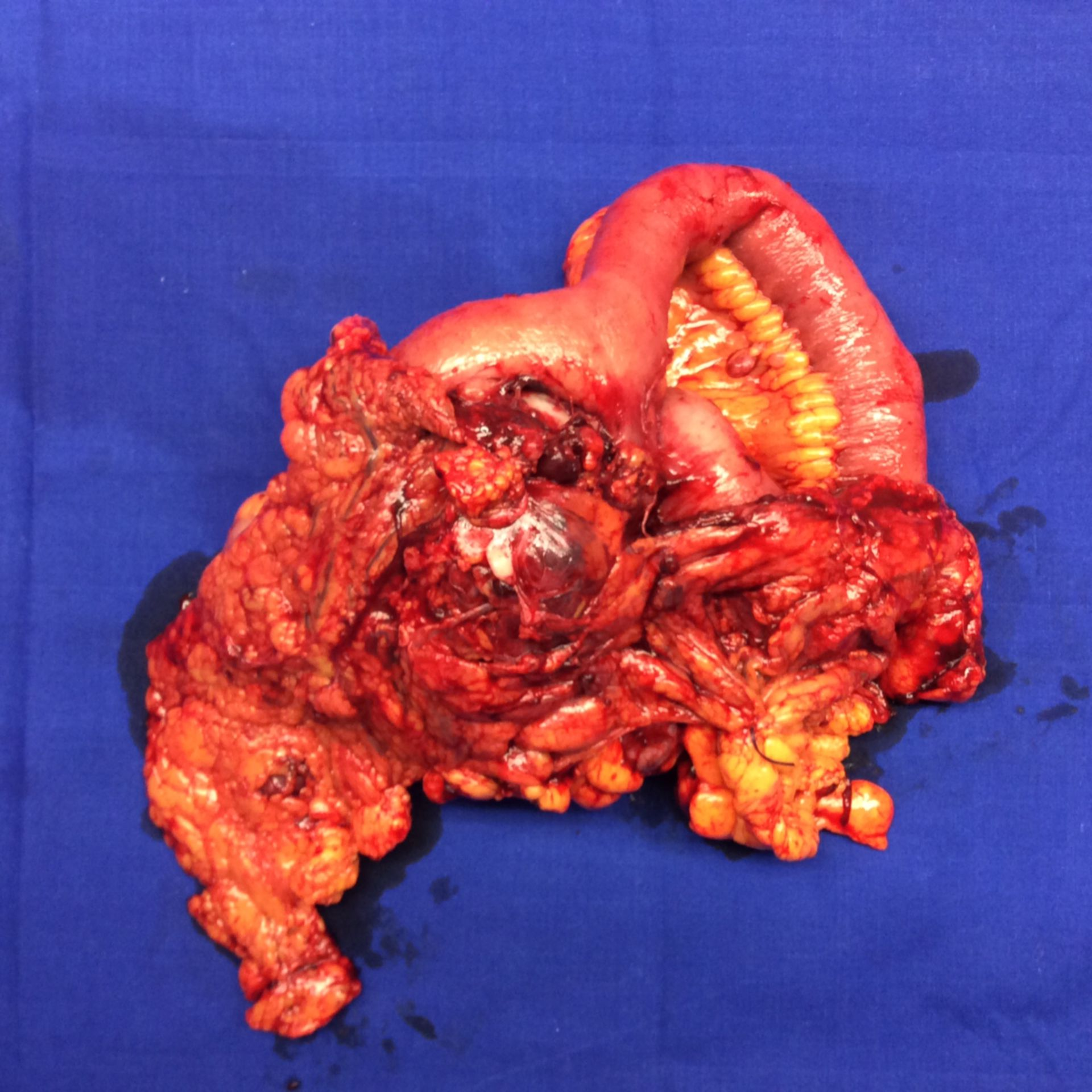 Intestinal tumor - resected tissue