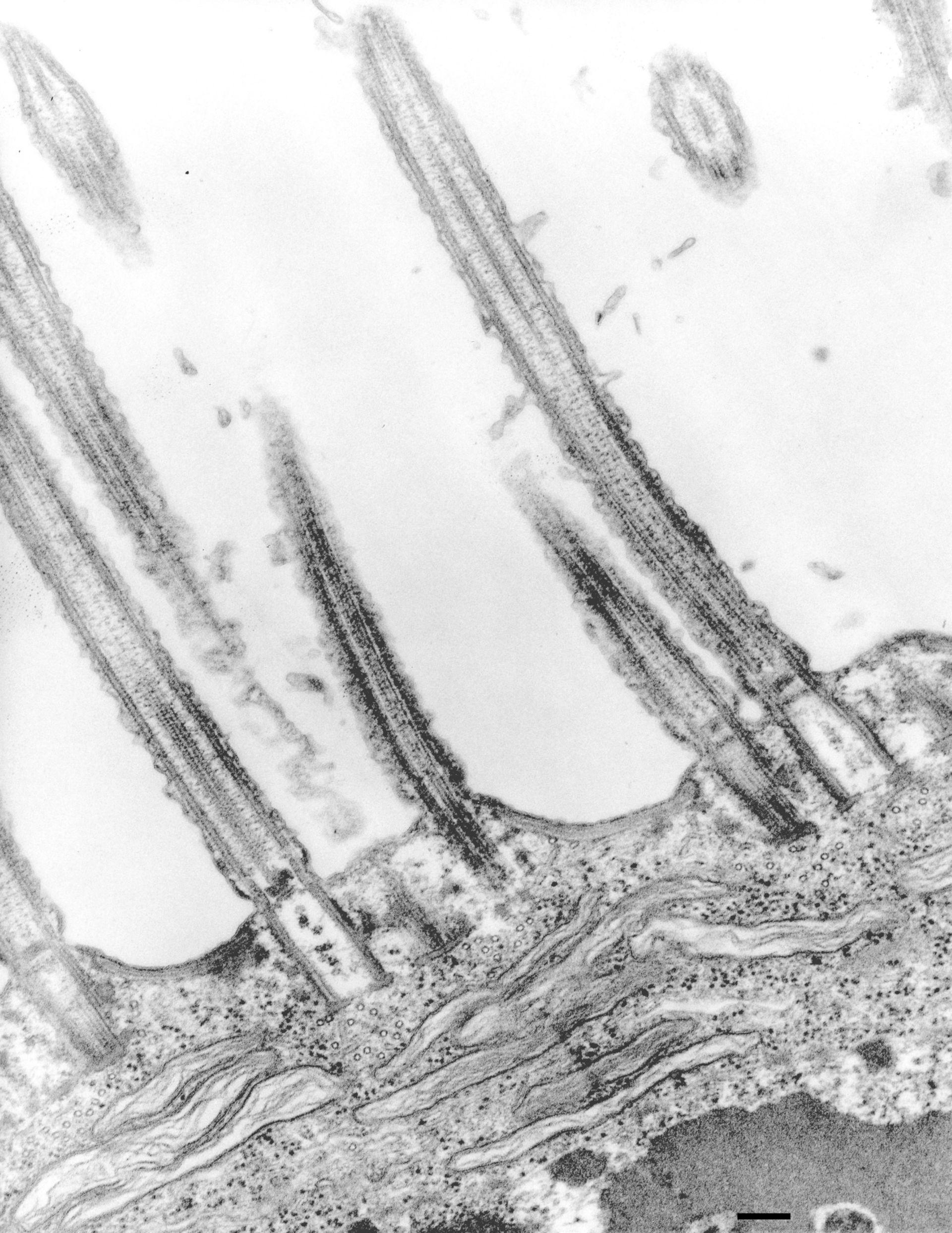 Euplotes sp. (corpo basale microtubuli) - CIL:12342