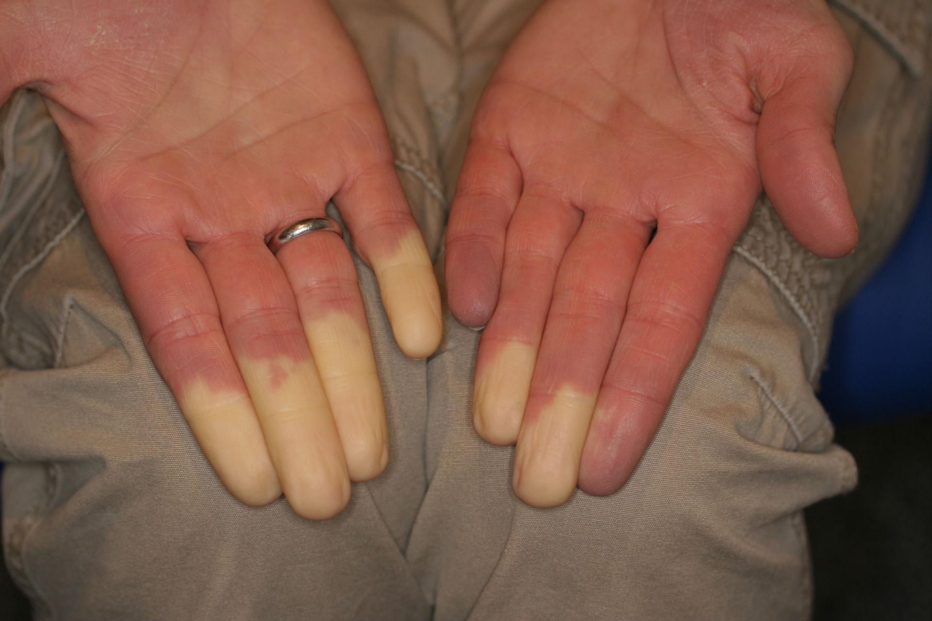 Raynaud-Syndrom