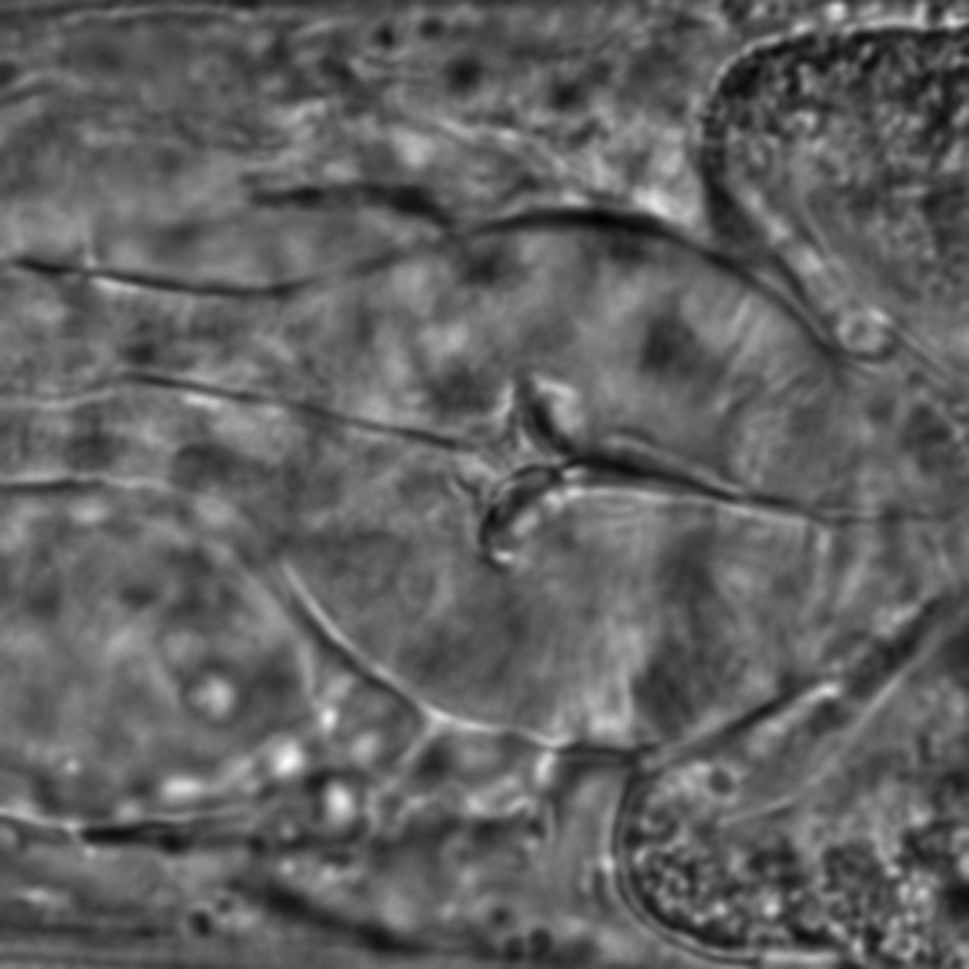 Caenorhabditis elegans - CIL:1612
