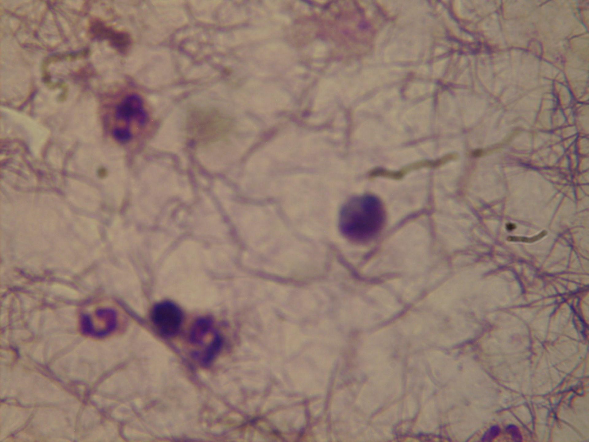 plasmodium ovale schüffner typfungd
