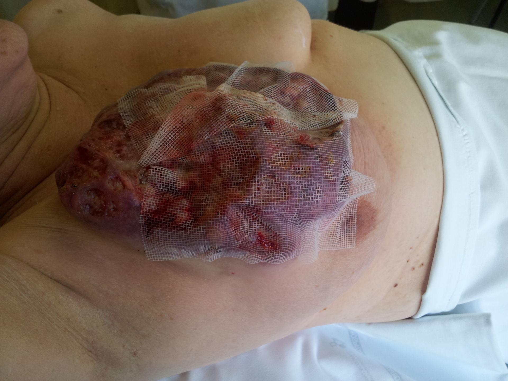 Cancer de mama (3)