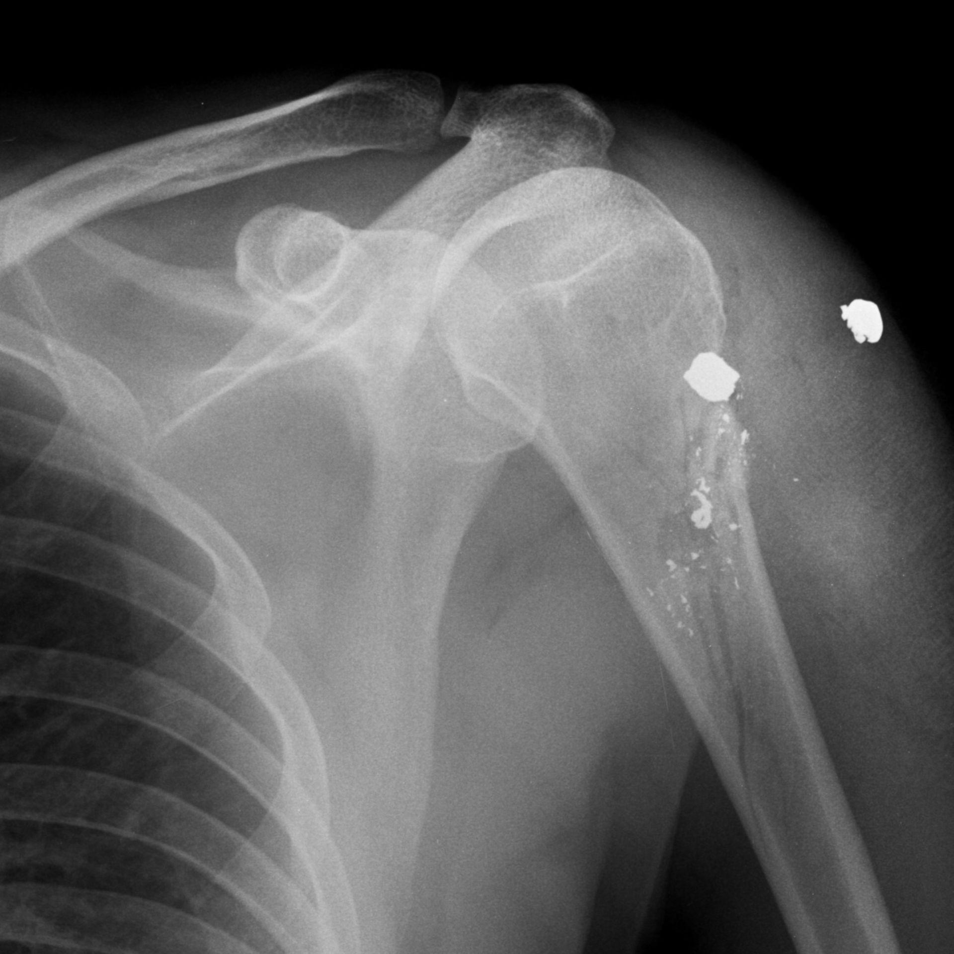 Colpo di pistola al braccio superiore con frattura prossimale dell'omero